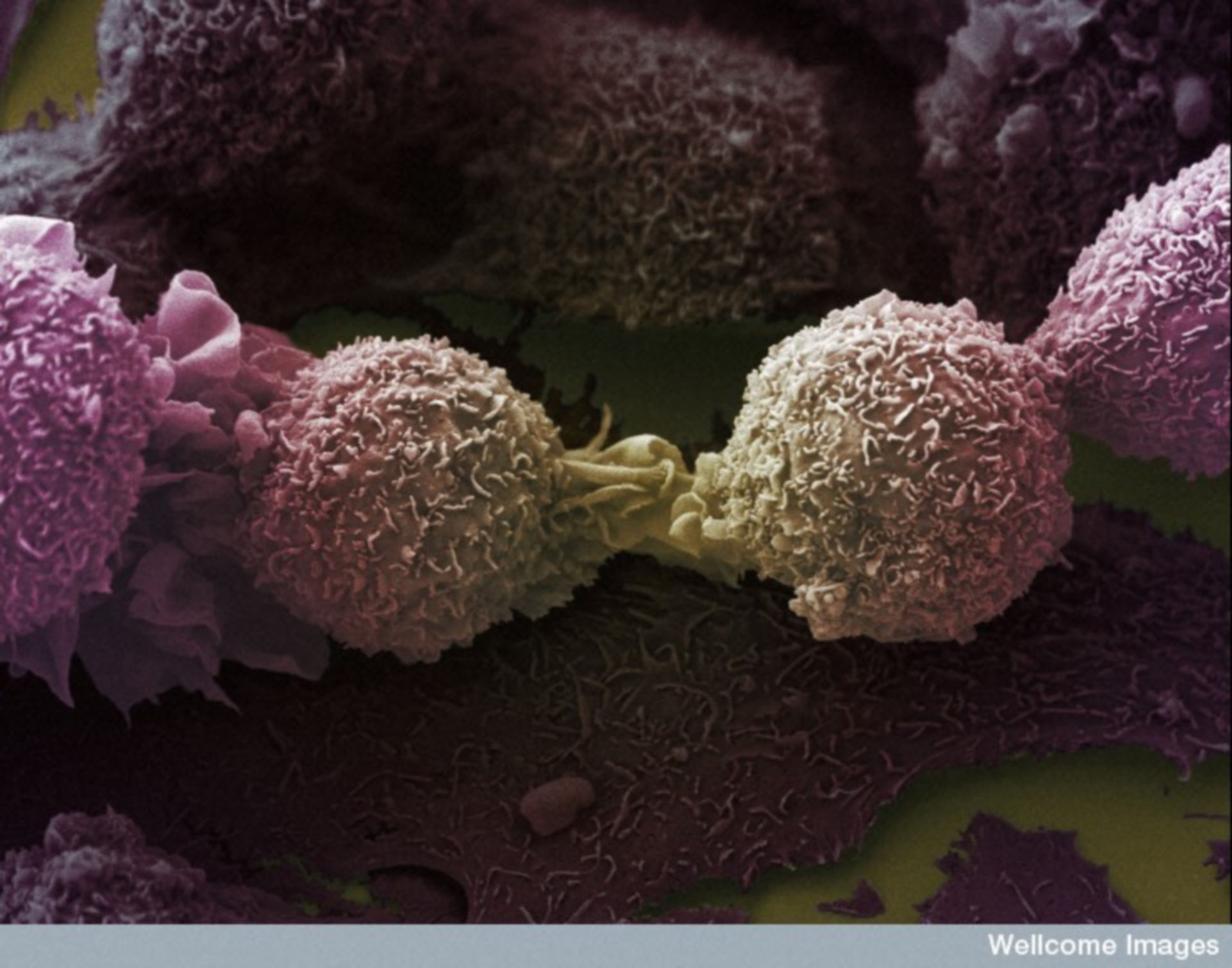 No Joke for Cancer. Image of the Week - July 23, 2018 - CIL:39107 - http://www.cellimagelibrary.org/images/39107