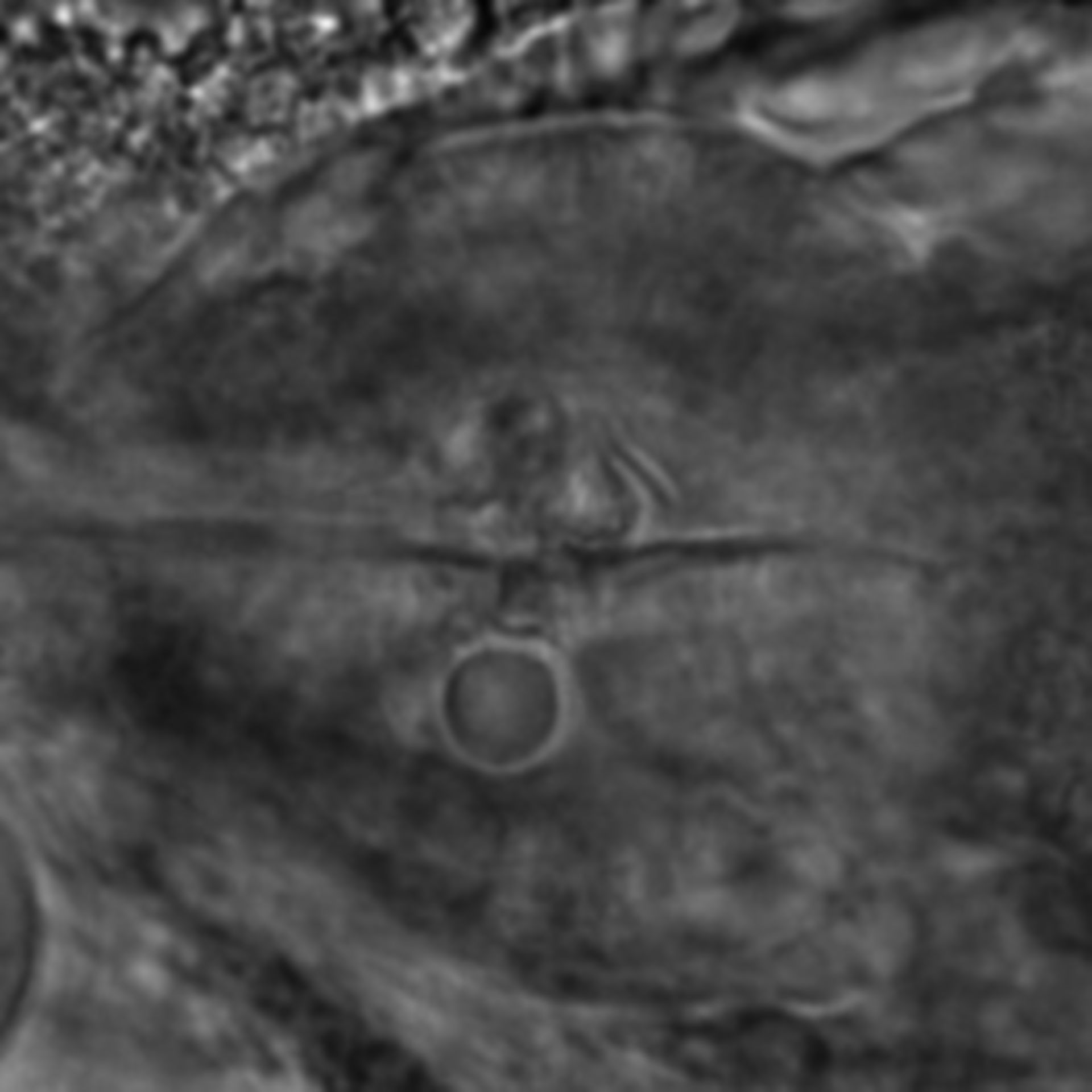 Caenorhabditis elegans - CIL:2257