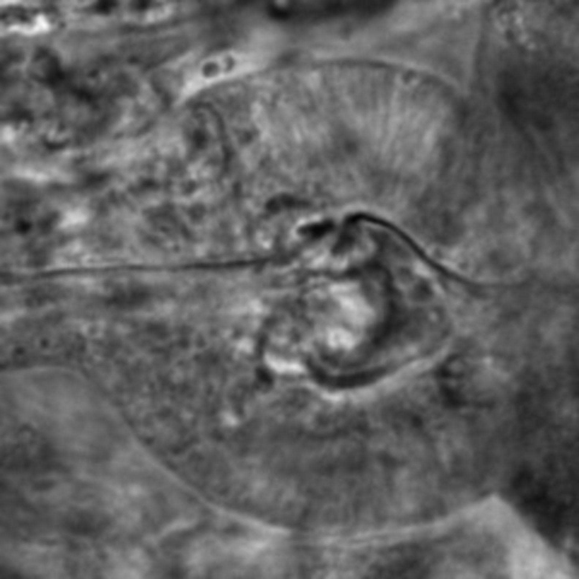 Caenorhabditis elegans - CIL:2596