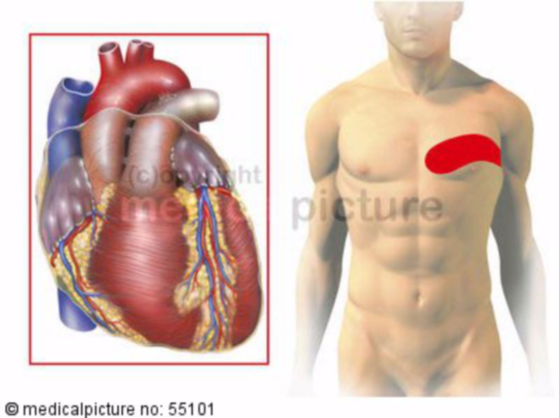 Heart: zones of referred pain