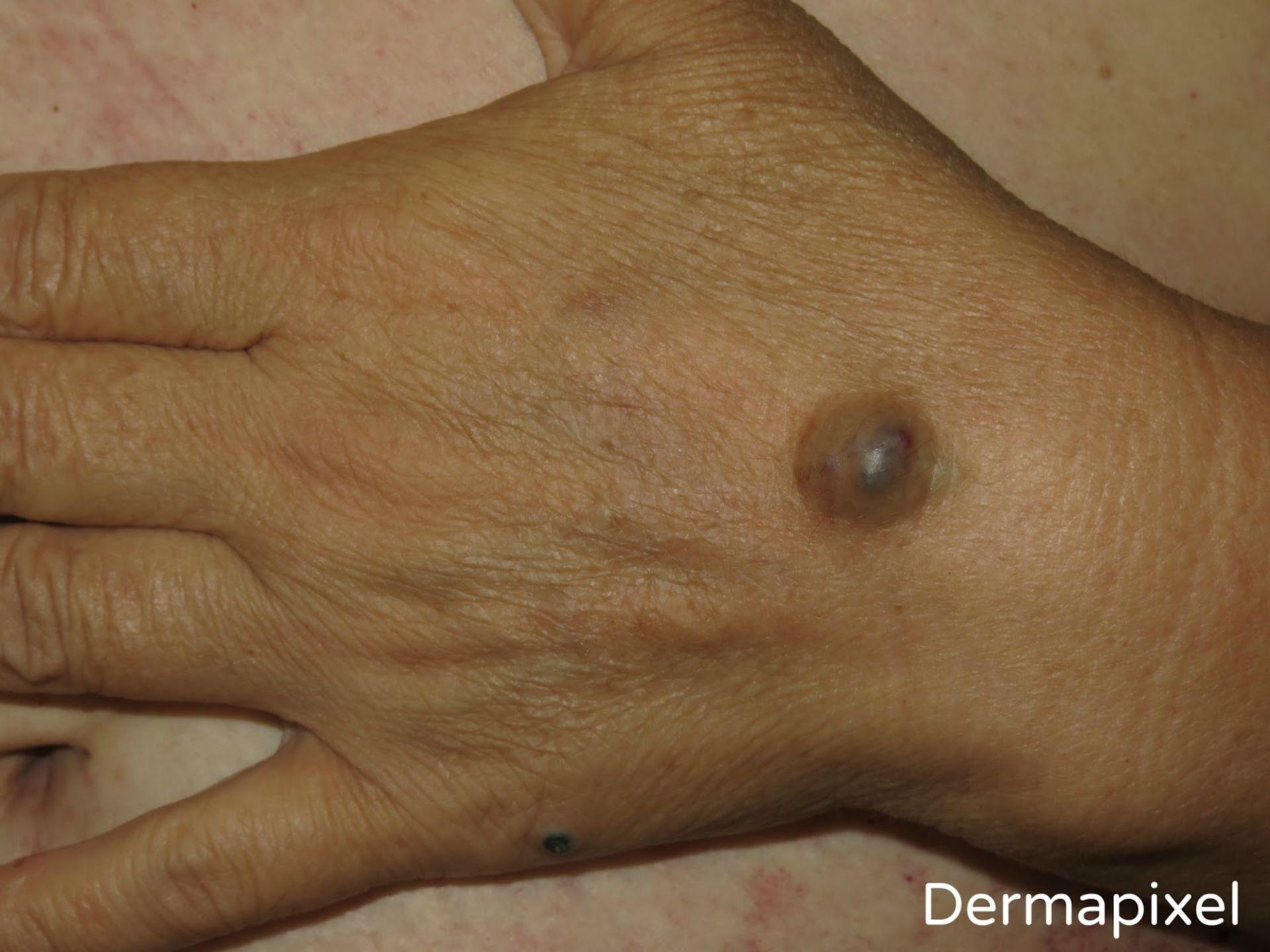 Síndrome del nevus azul en tetina de goma (1)