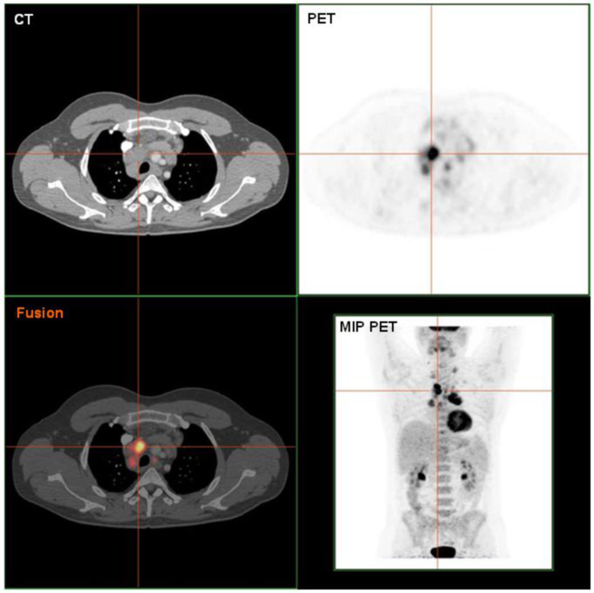 PET / CT scan di un linfoma di Hodgkin istologicamente, convalidato.