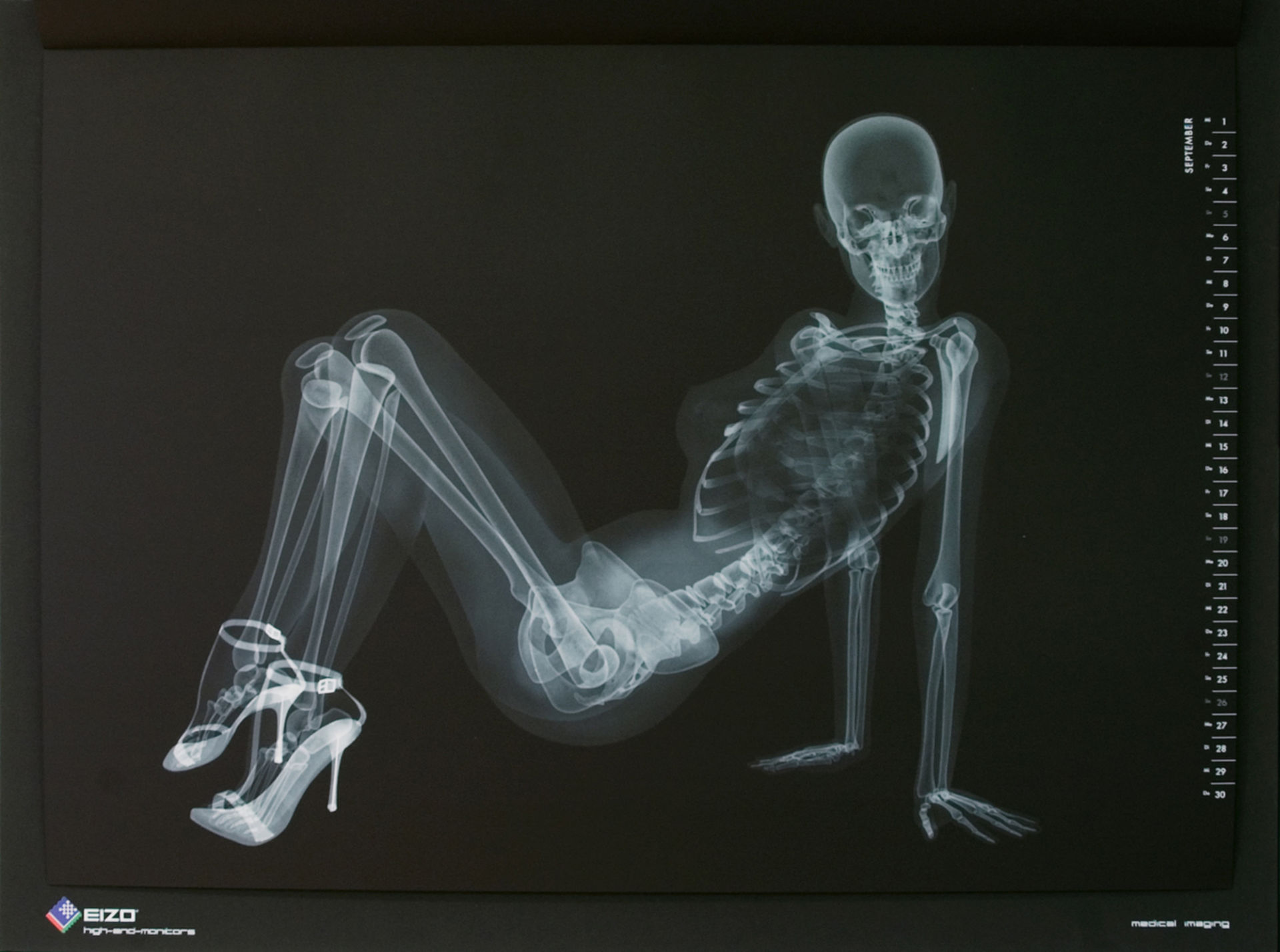 X-ray calendario pinup di EIZO (settembre)