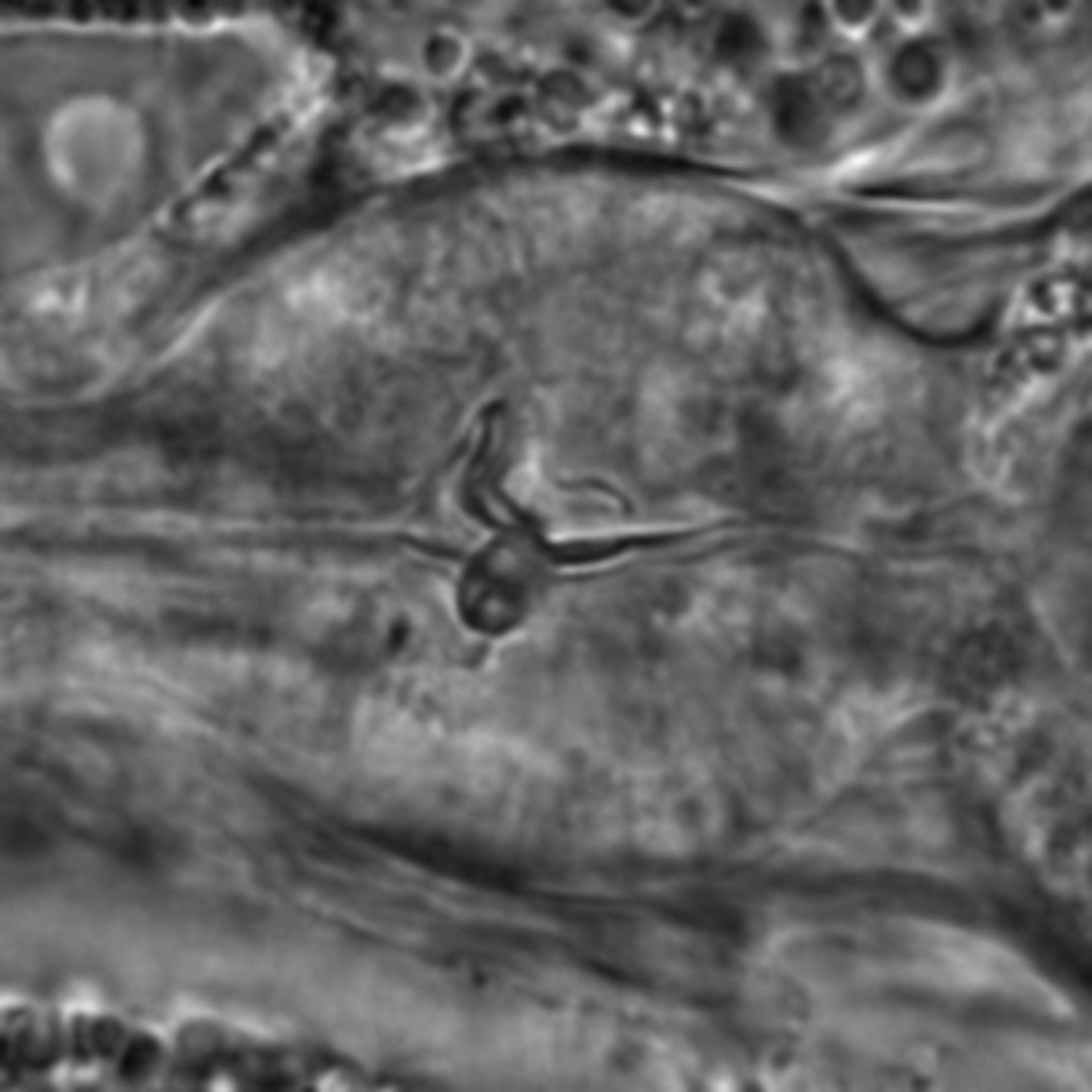 Caenorhabditis elegans - CIL:1749