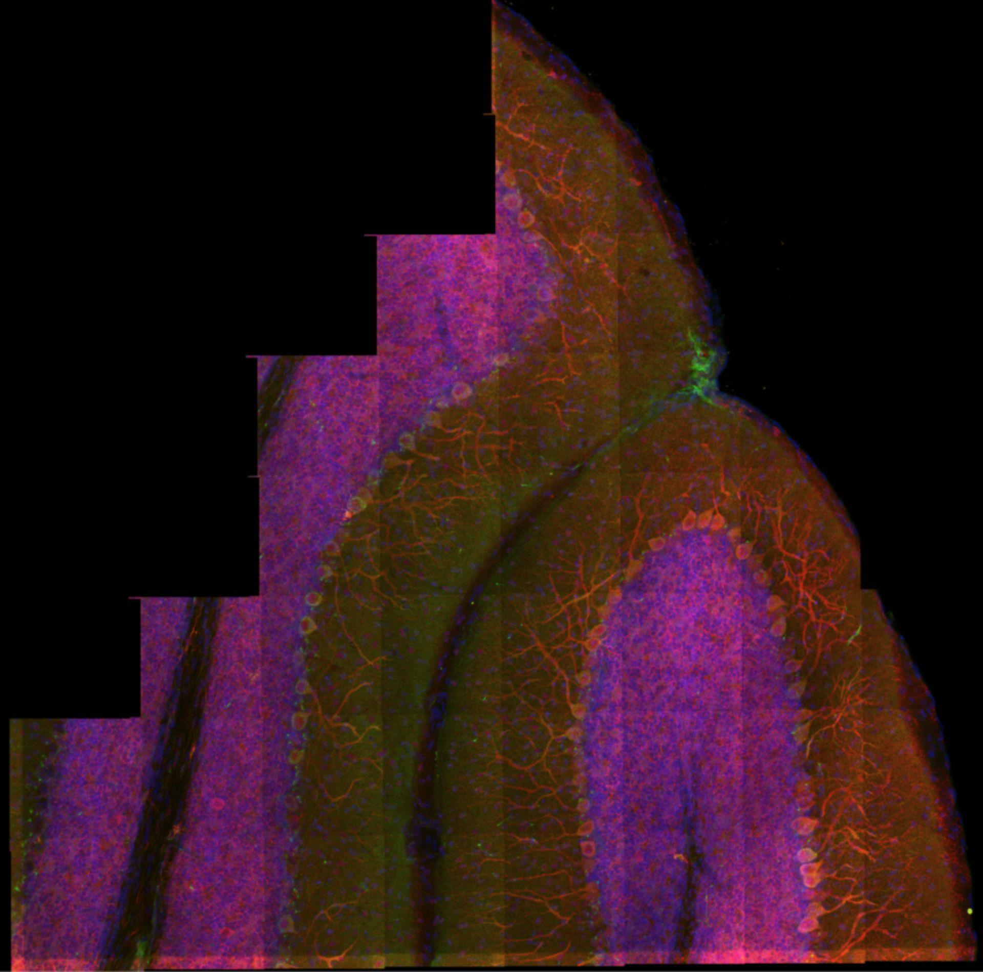 Kleinhirnrinde - Mikroskopie