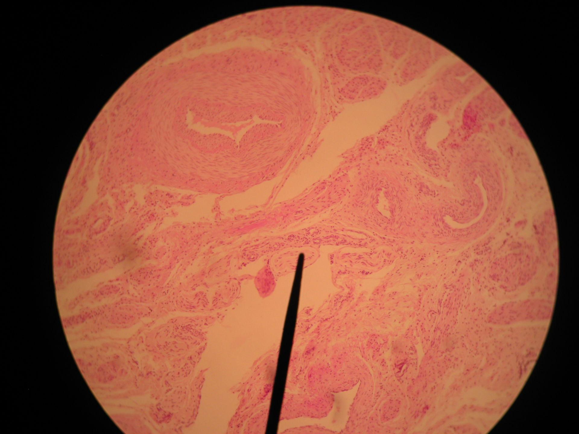 Gebärmutterhals der Zibbe