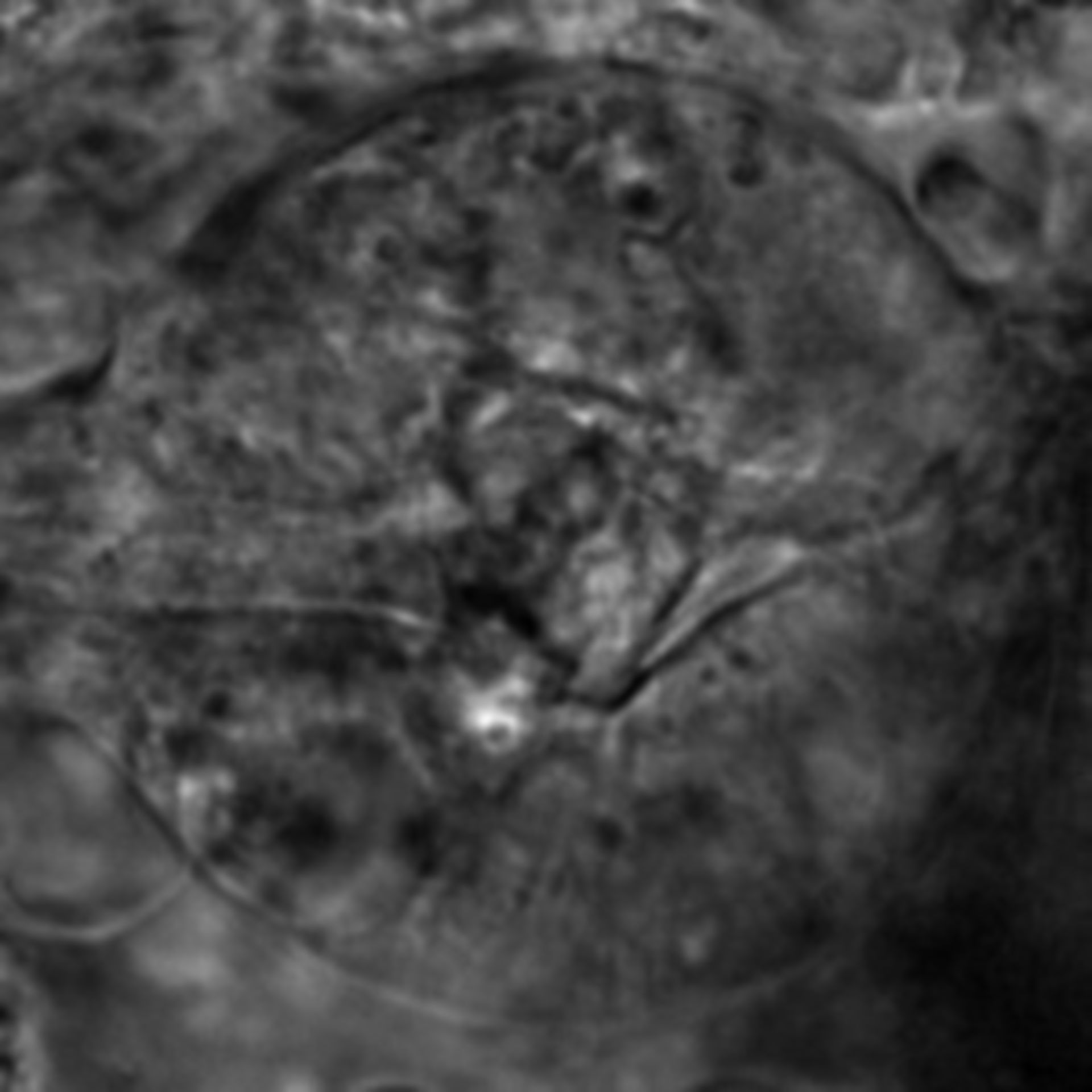 Caenorhabditis elegans - CIL:2658