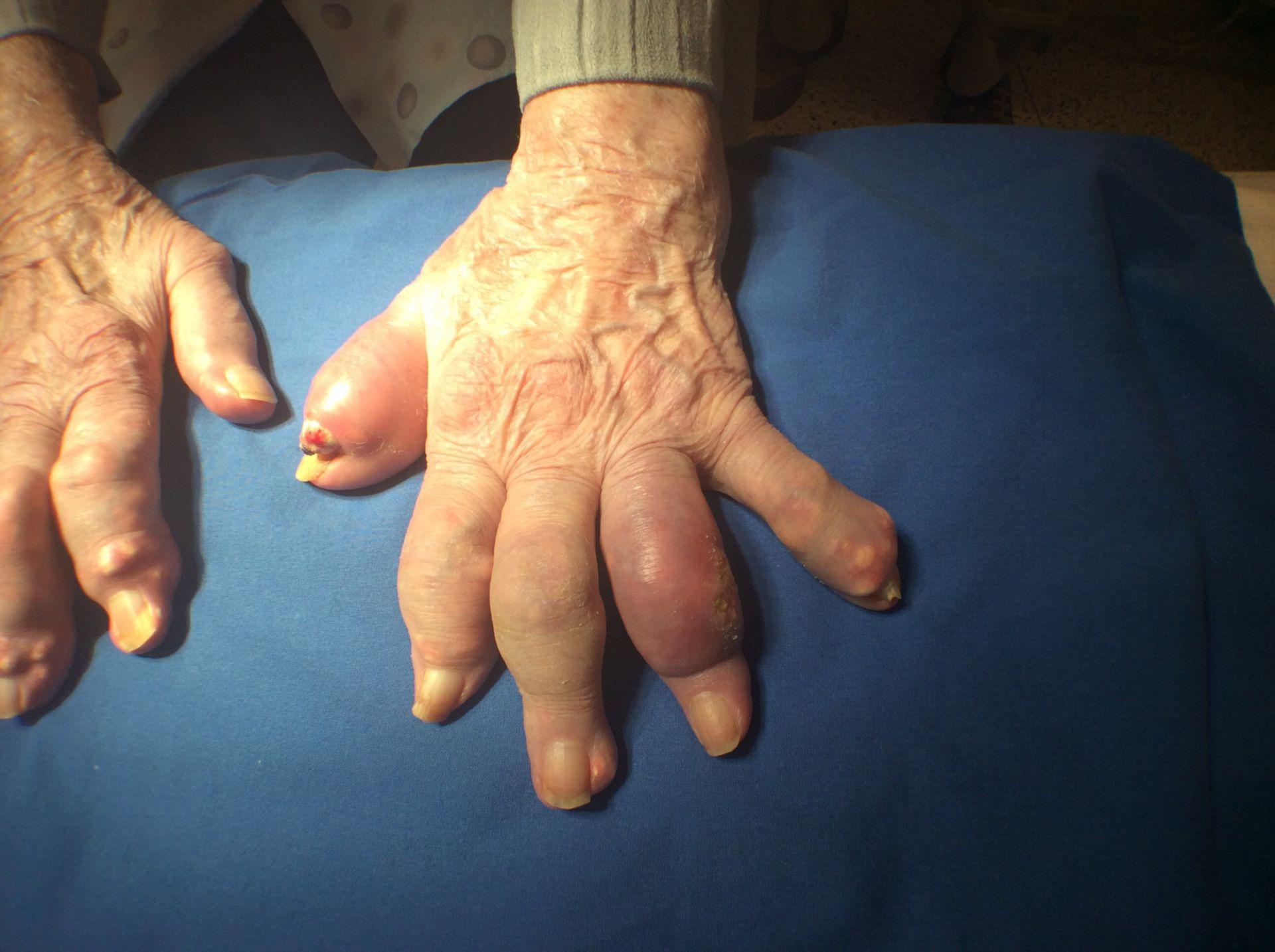 Arthritis urica - Gichttophi