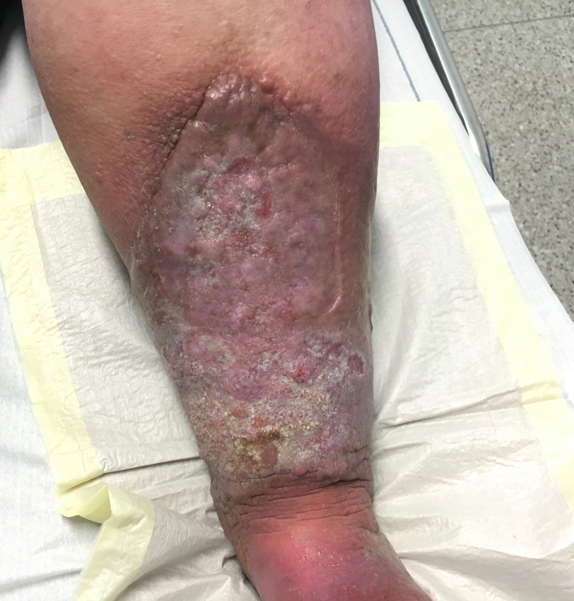 venous ulcers with chronic venous insufficiency