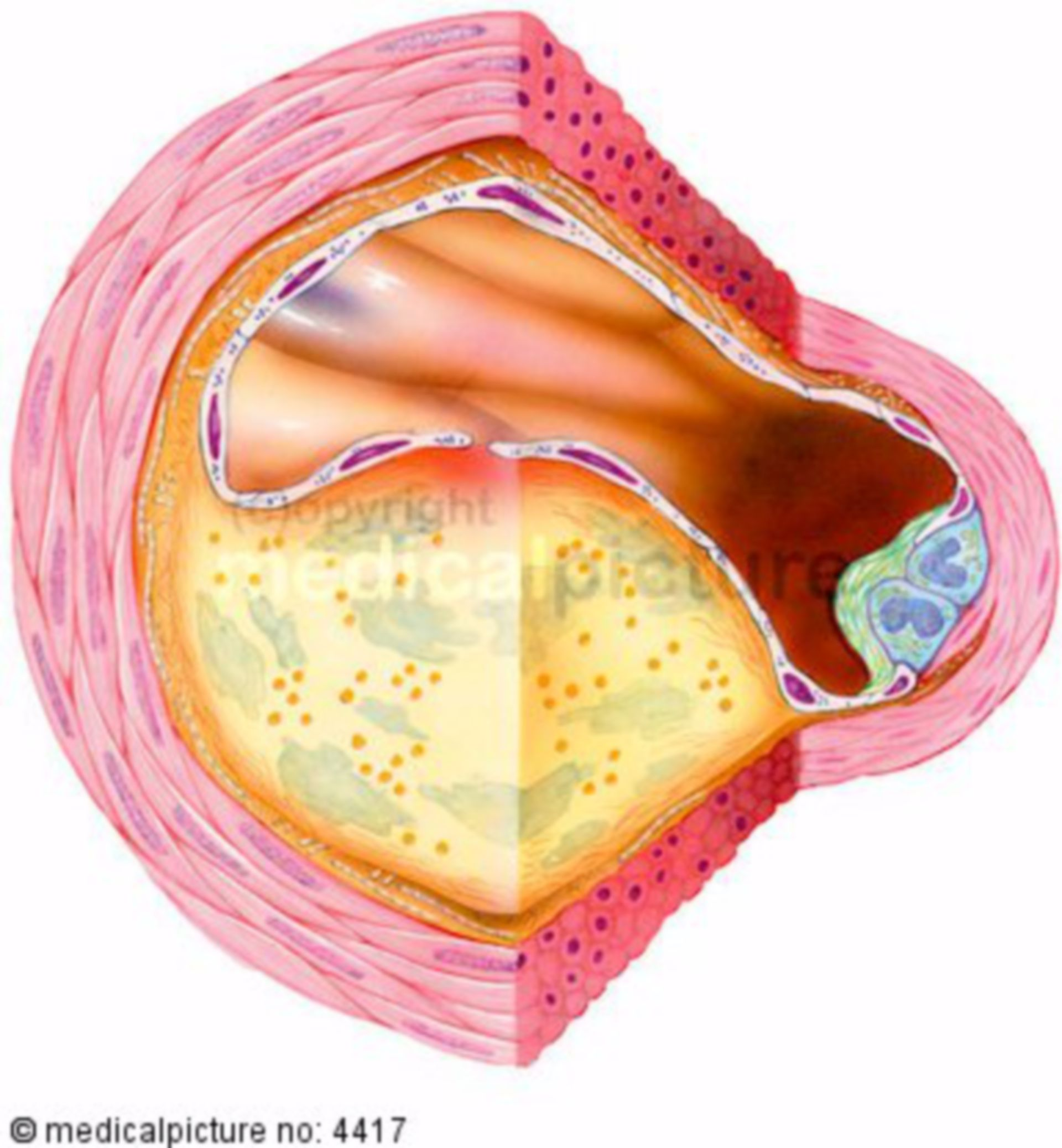 Artery with atherosclerosis, arterial wall