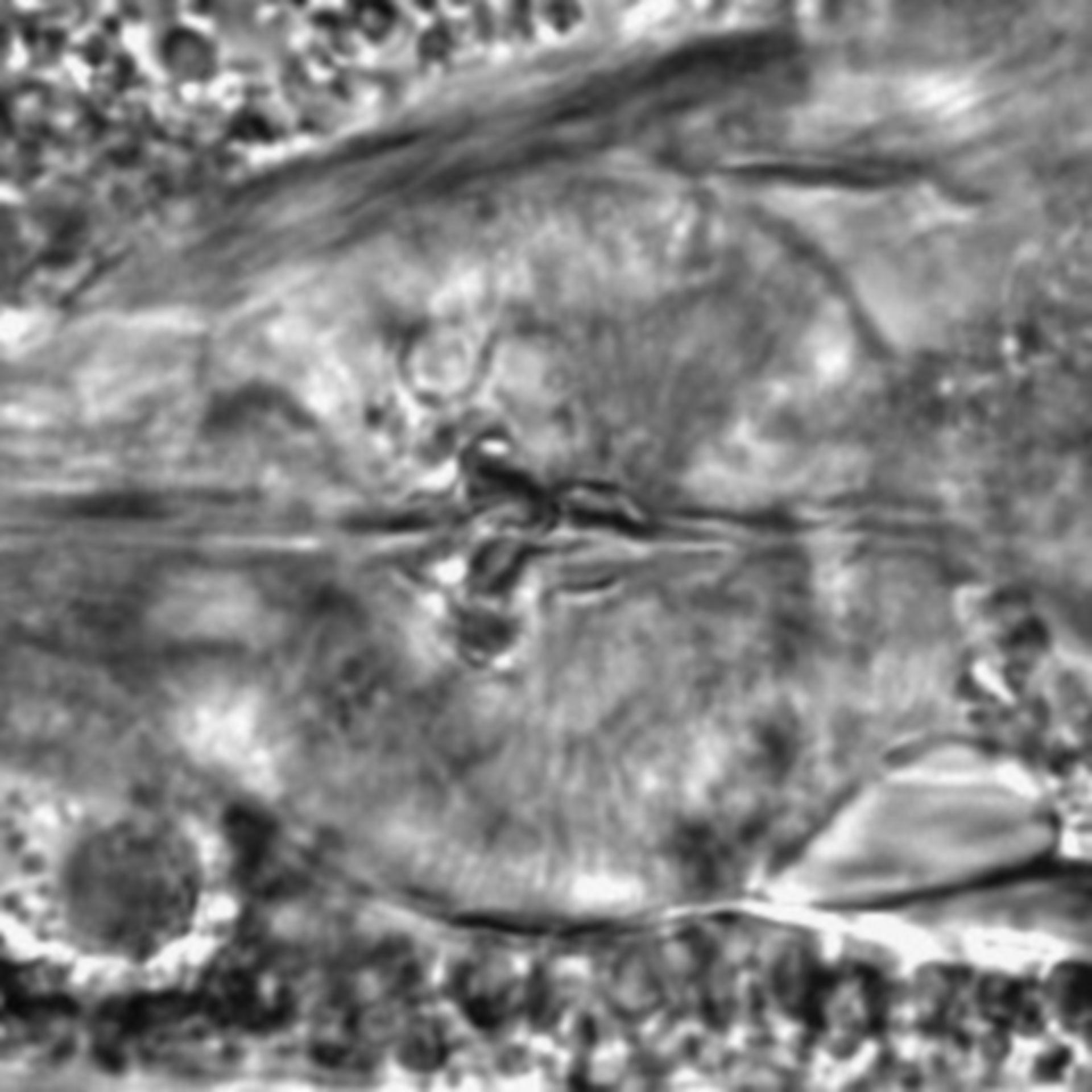 Caenorhabditis elegans - CIL:1795