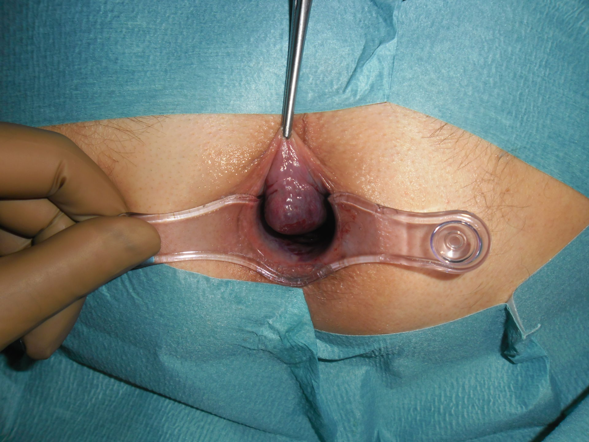 Large hemorrhoid