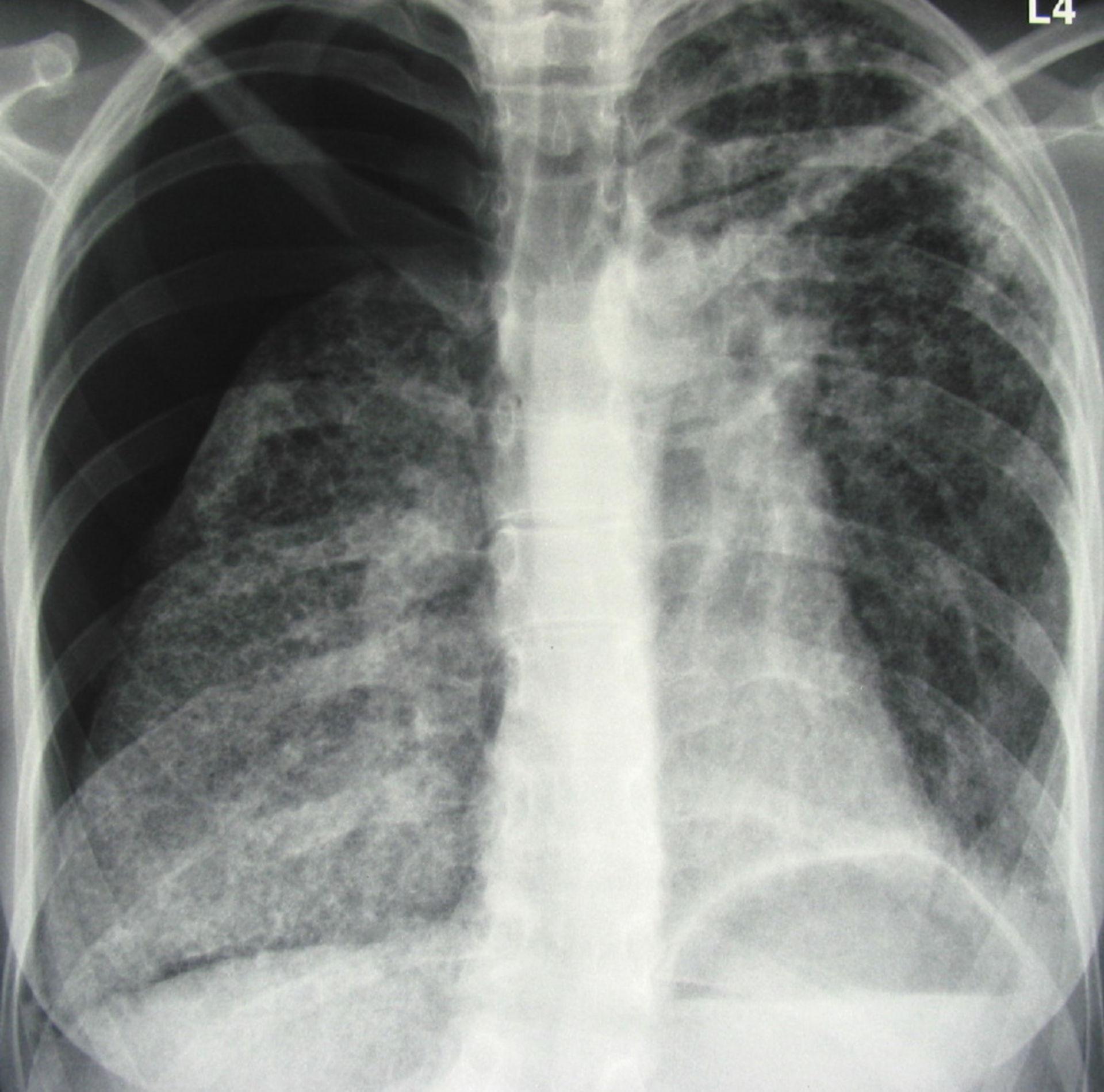 Neumotórax y fibrosis en pulmón derecho
