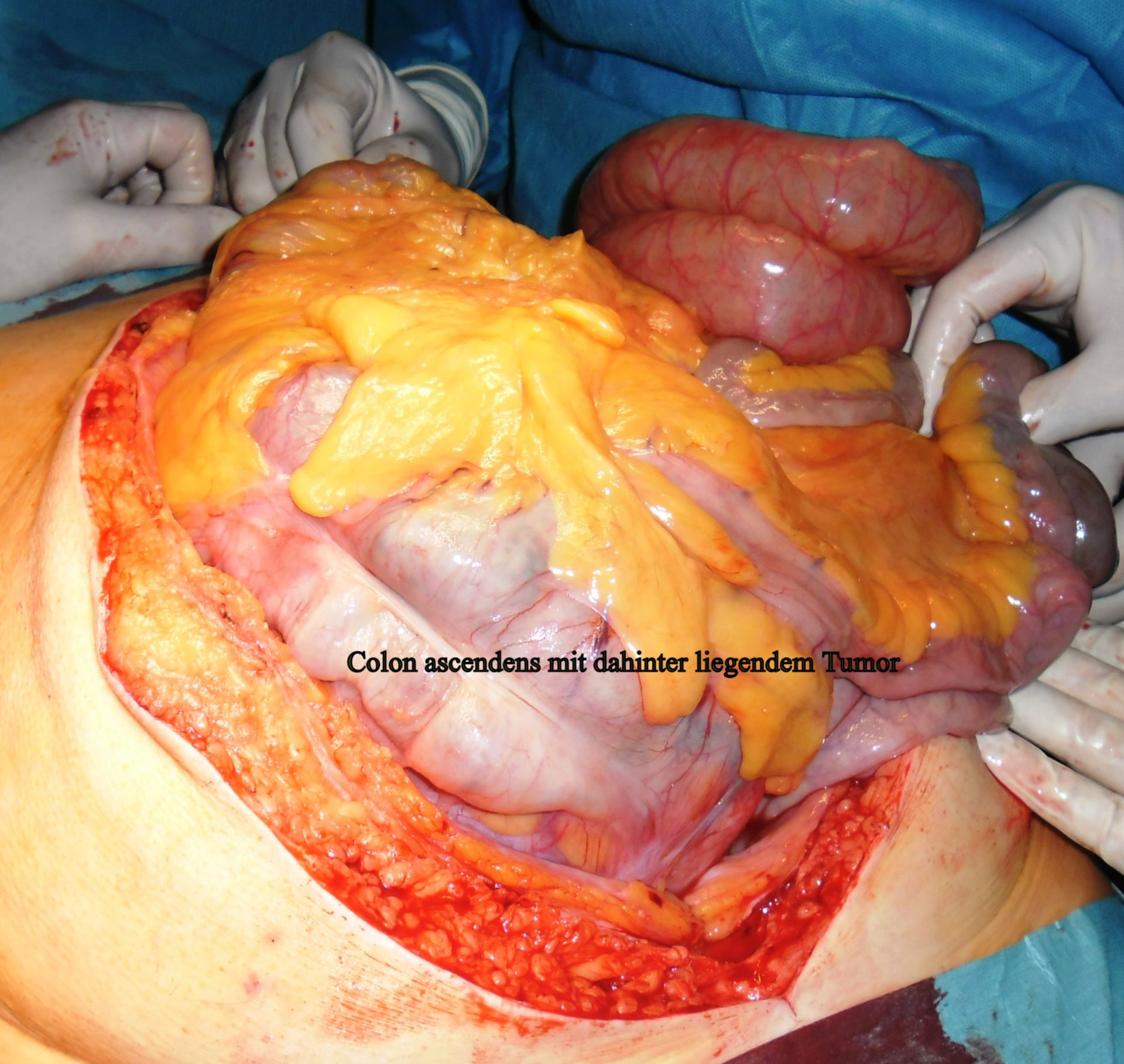 Resección de liposarcoma 1