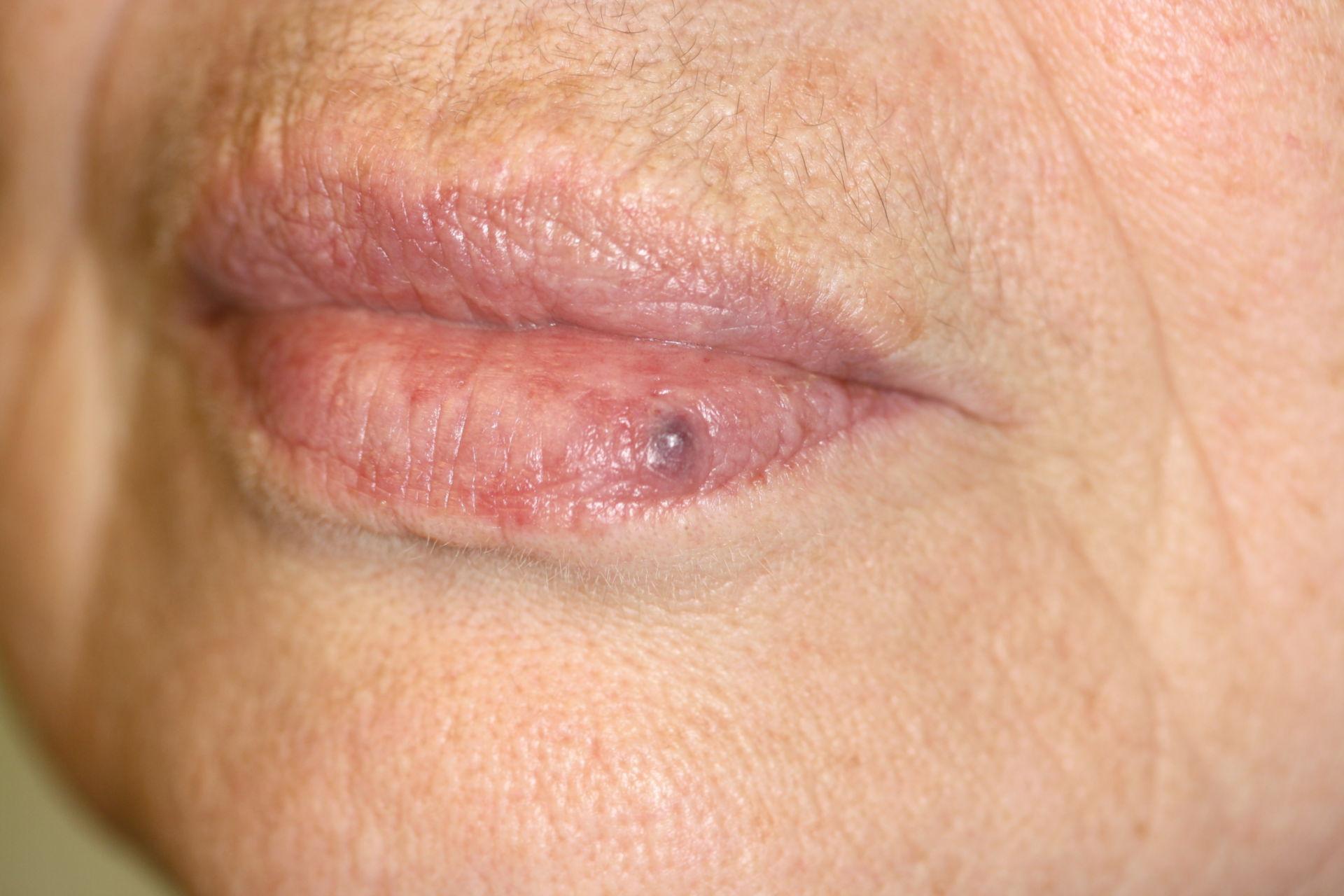 Lippenrandangiom