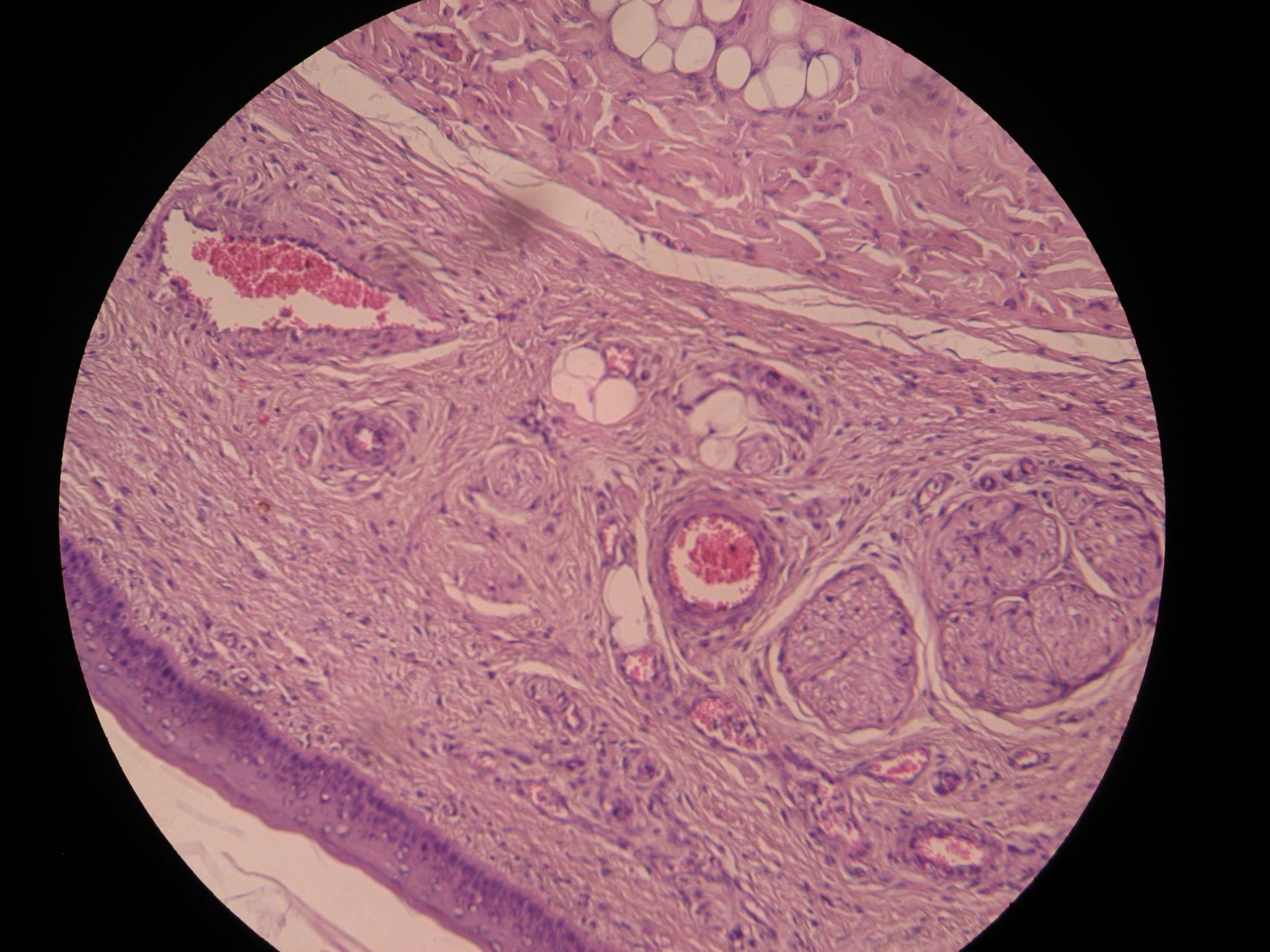 Veterinary Medicine: Glans Penis of a Cat (4) - Tunica albuginea