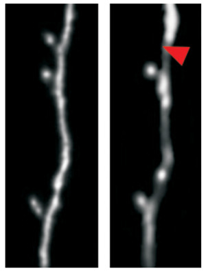 Ein Dornfortsatz (ca. 1 Mikrometer im Durchmesser) einer Großhirnnervenzelle einer lernenden Maus wird abgebaut. Zwei Bilder an zwei verschiedenen Tagen (roter Pfeil: fehlender Dornfortsatz). © Hertie-Institut für klinische Hirnforschung (HIH)