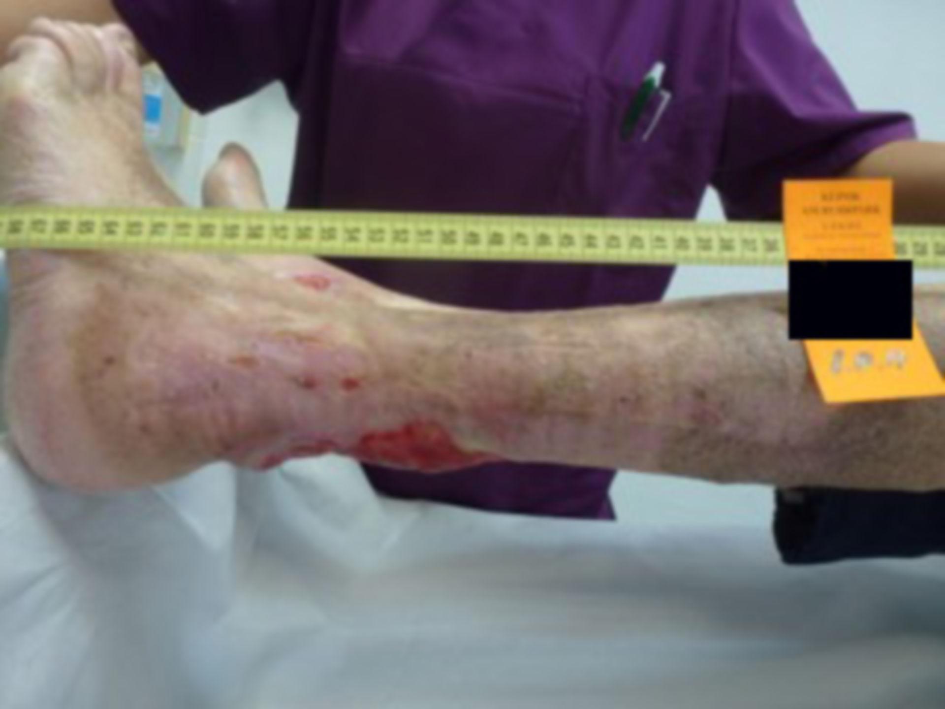 Úlcera de la pierna - abierta por 40 años (30)
