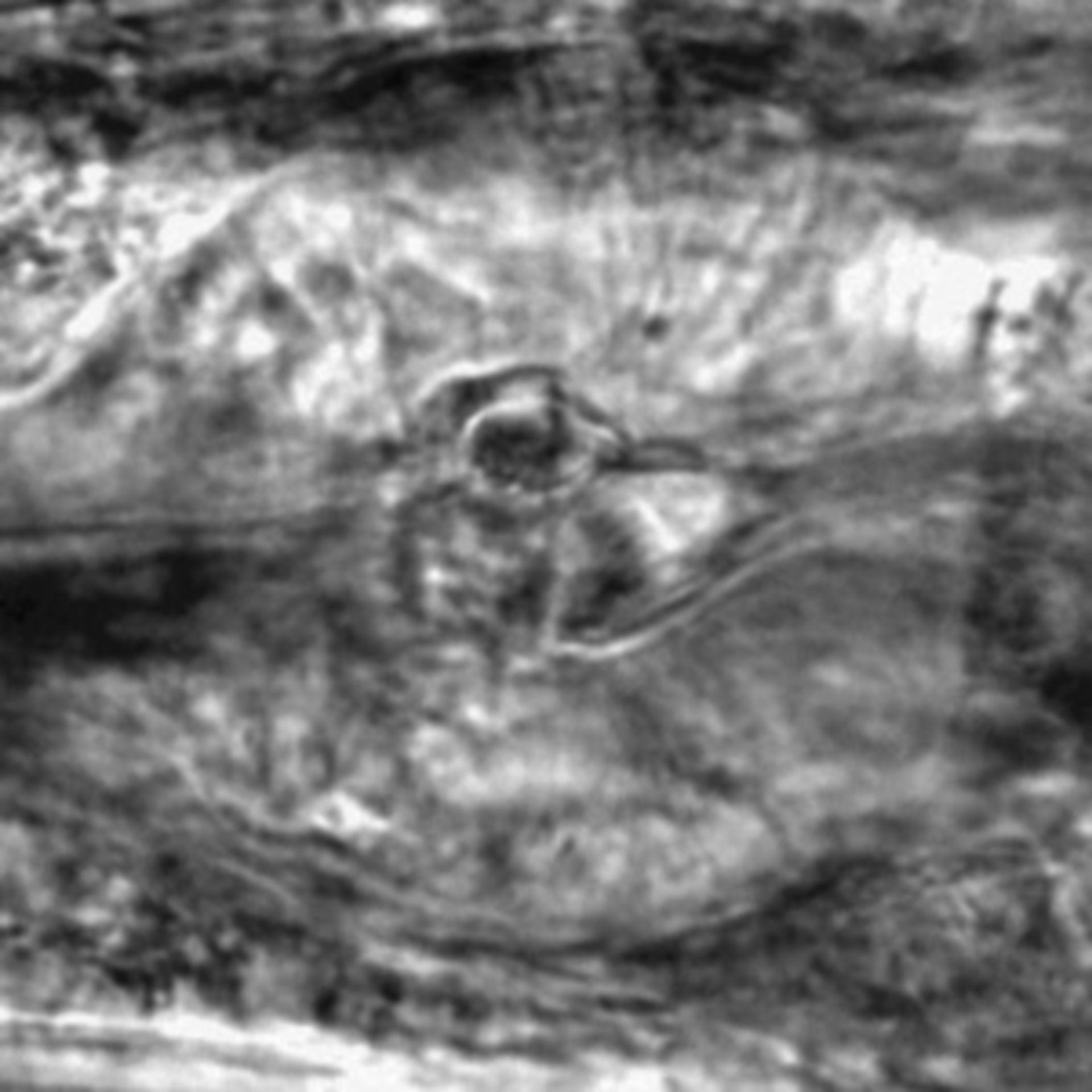 Caenorhabditis elegans - CIL:2811