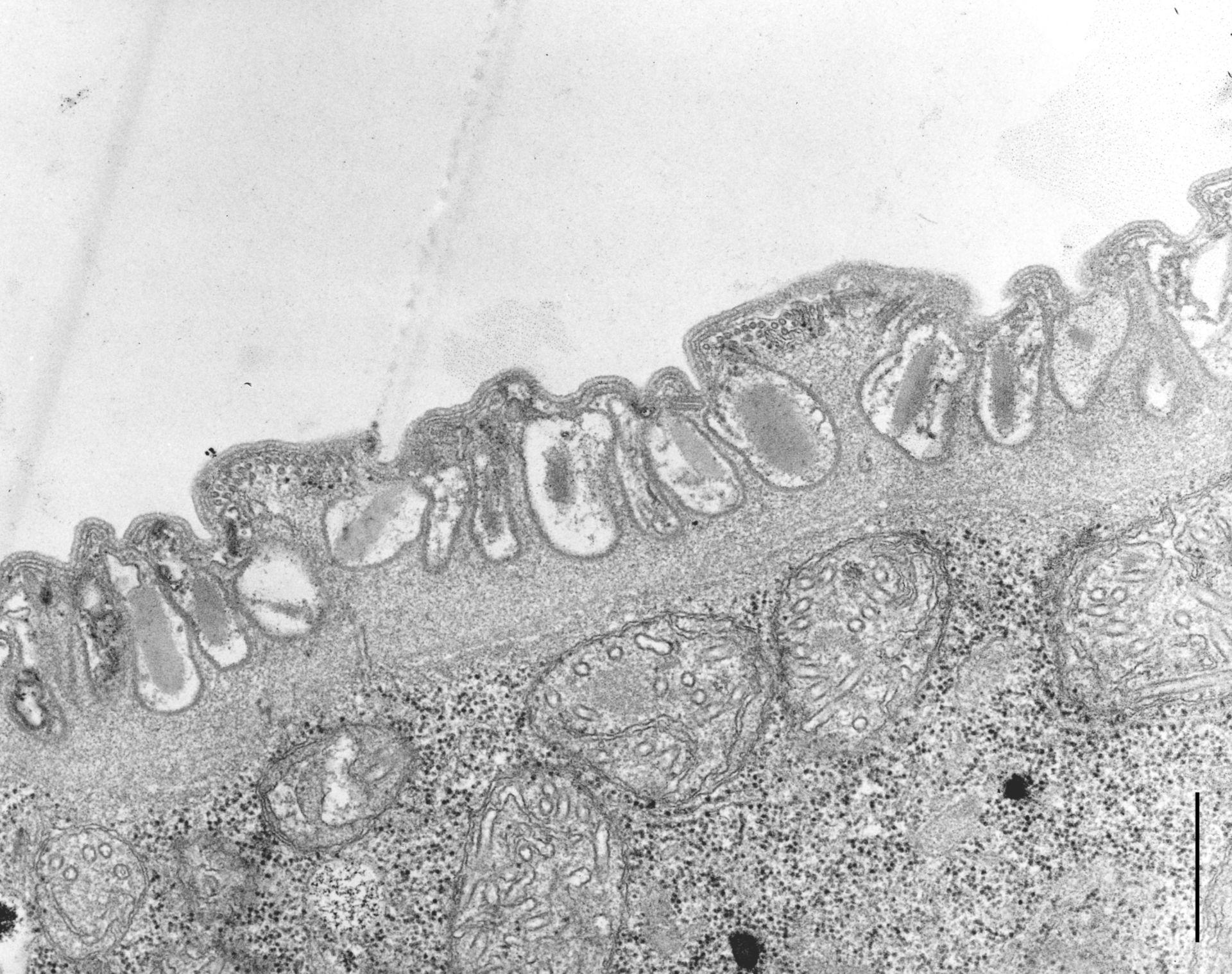 Didinium nasutum (Extrusomes) - CIL:10004