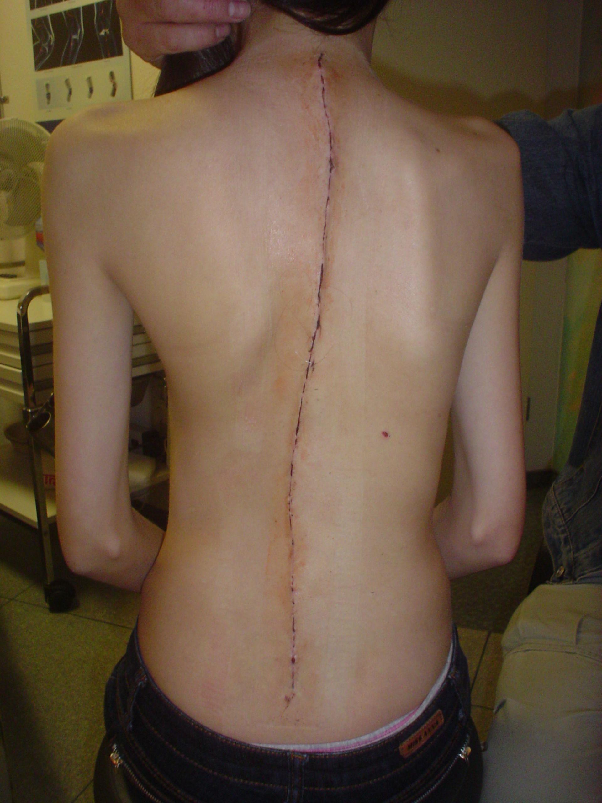 Escoliosis juvenil - cicatrización de heridas después de la cirugía