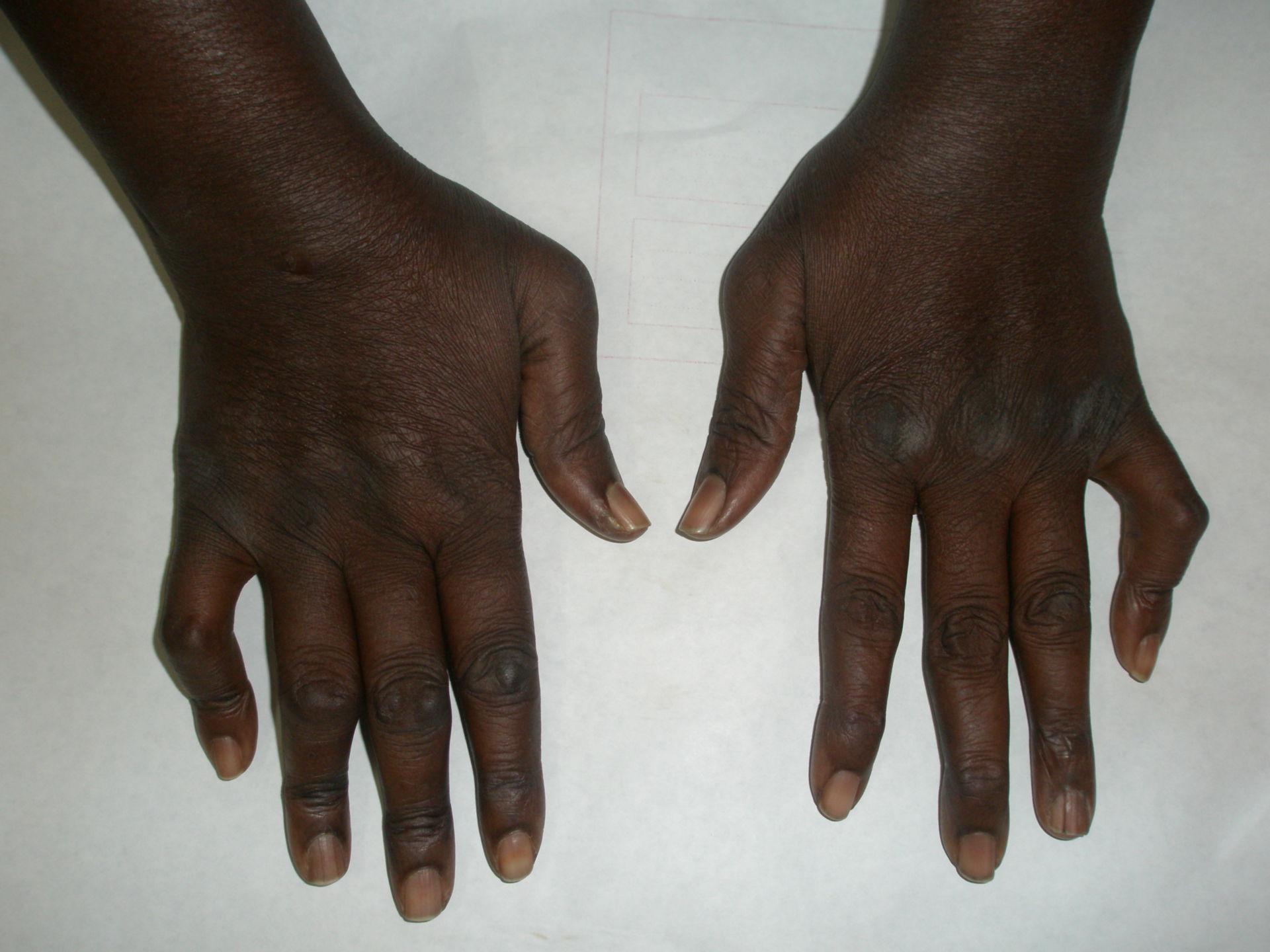 L'artrite reumatoide, deformità mano