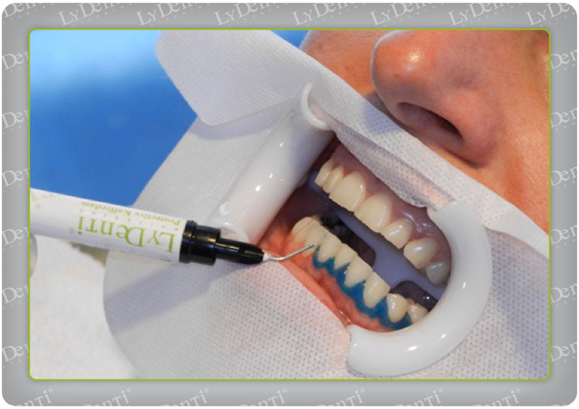 Blanqueamiento dental (10)