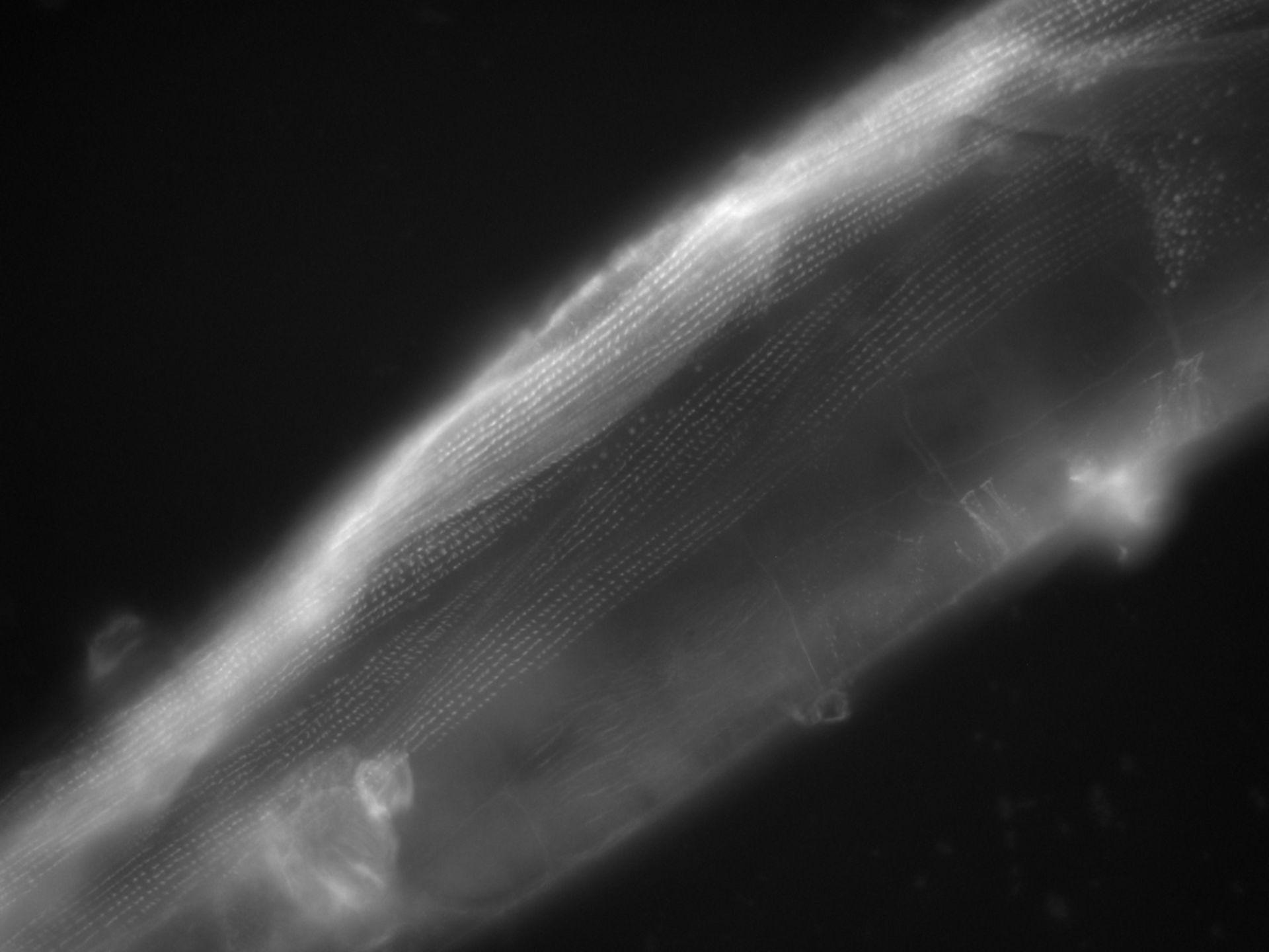 Caenorhabditis elegans (Actin filament) - CIL:1120