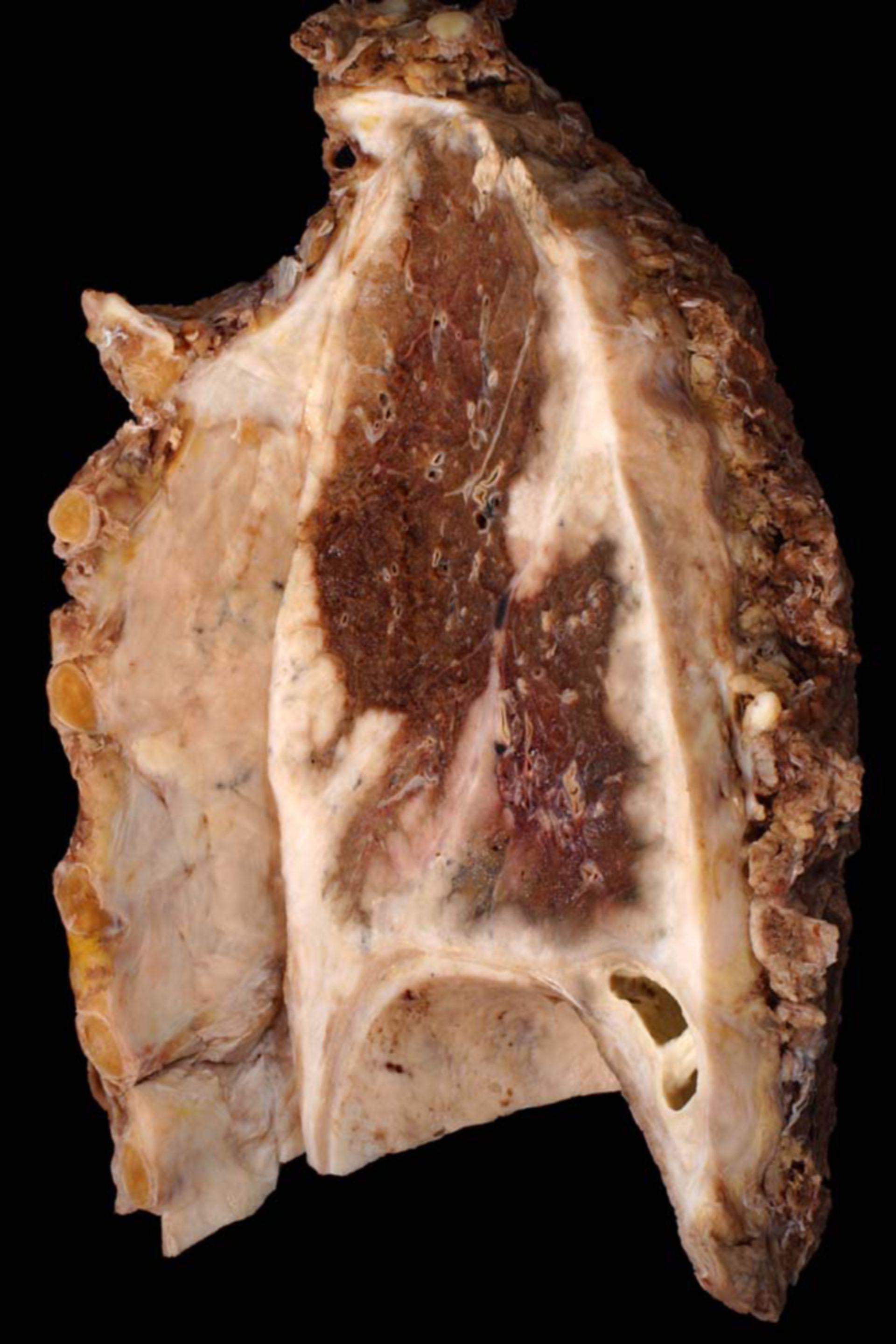 Malignes Pleuramesotheliom (Lunge, Präparat)