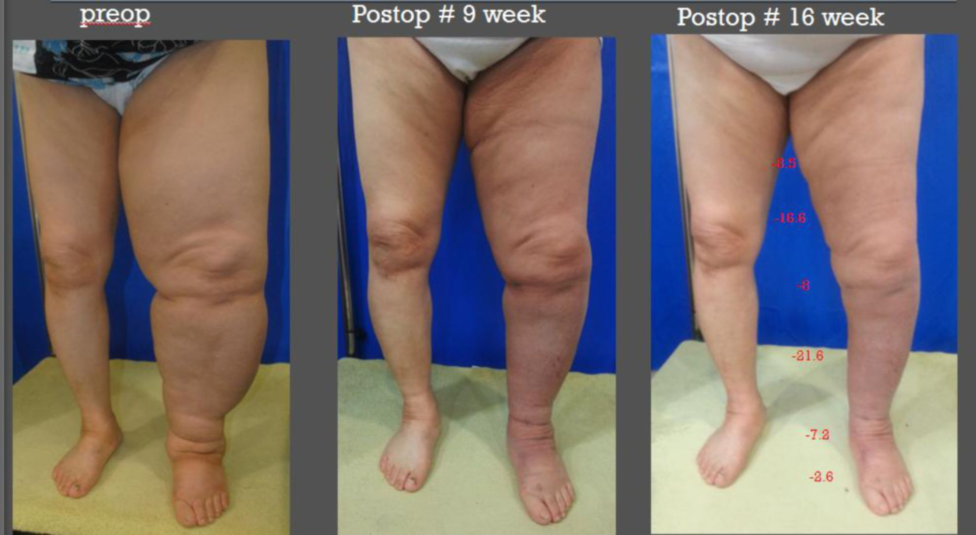 Lymphedema left leg (Yonsei S Hospital, Seoul/Korea)