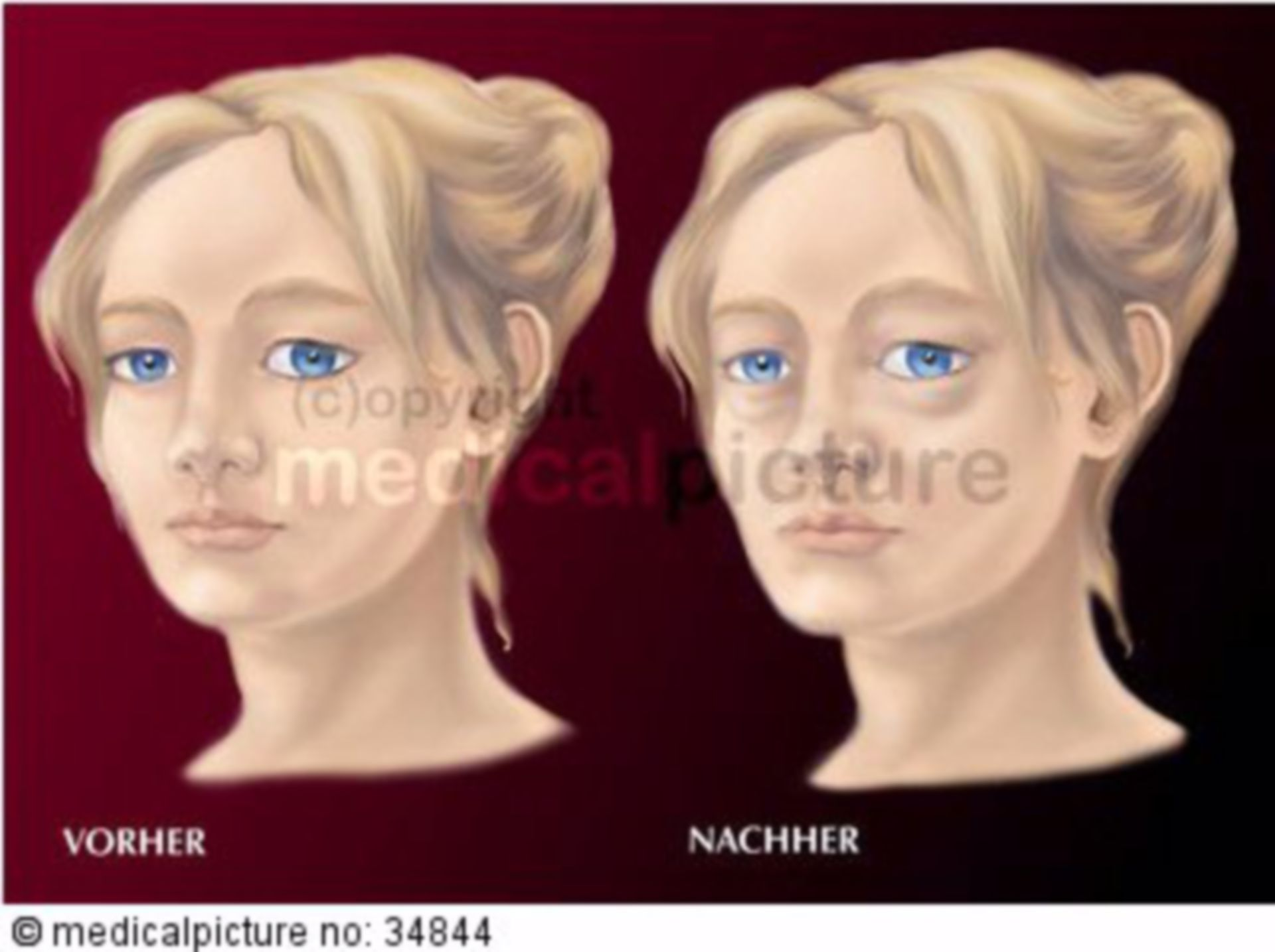 Edemas de la cara