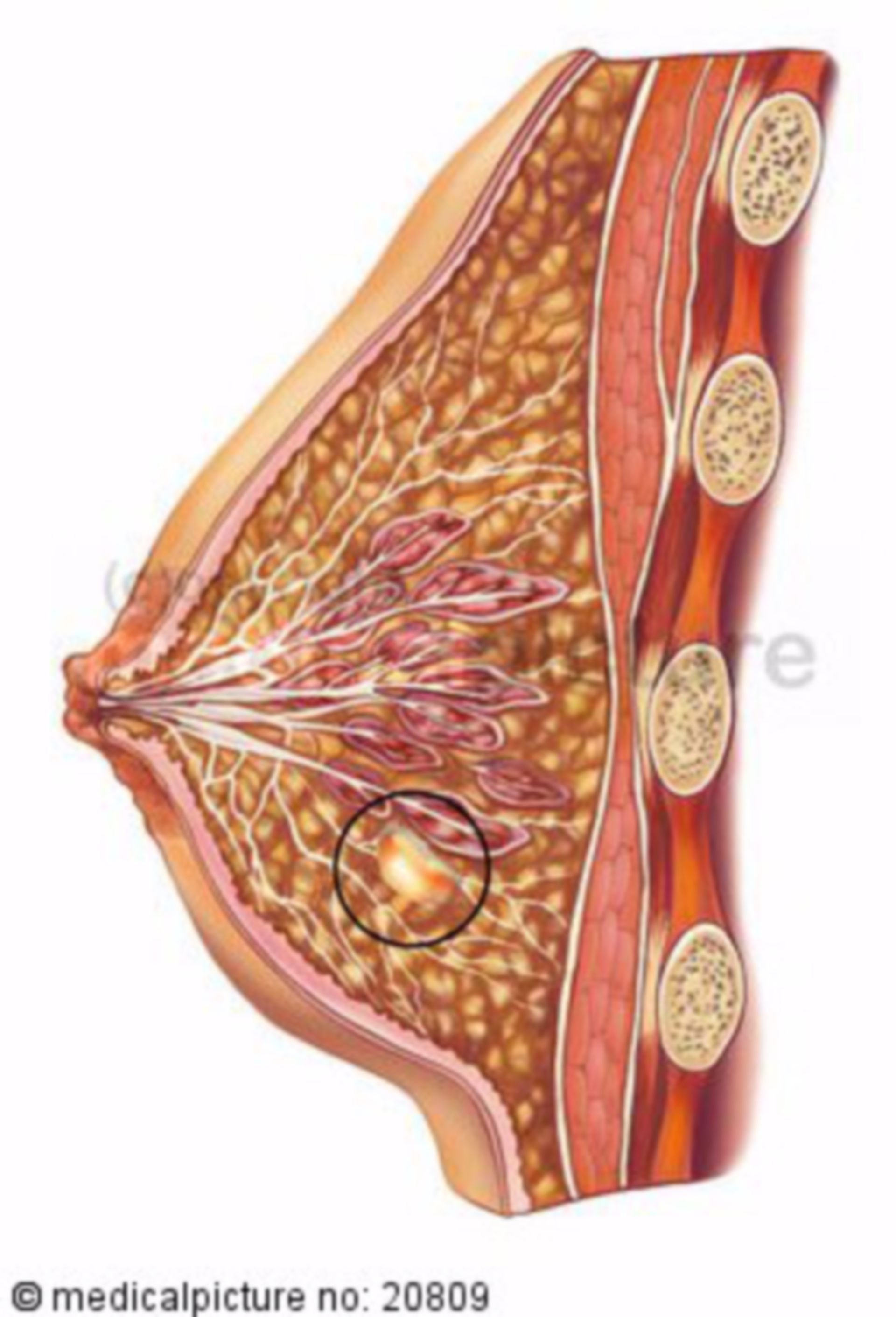 Cyst of the female breast
