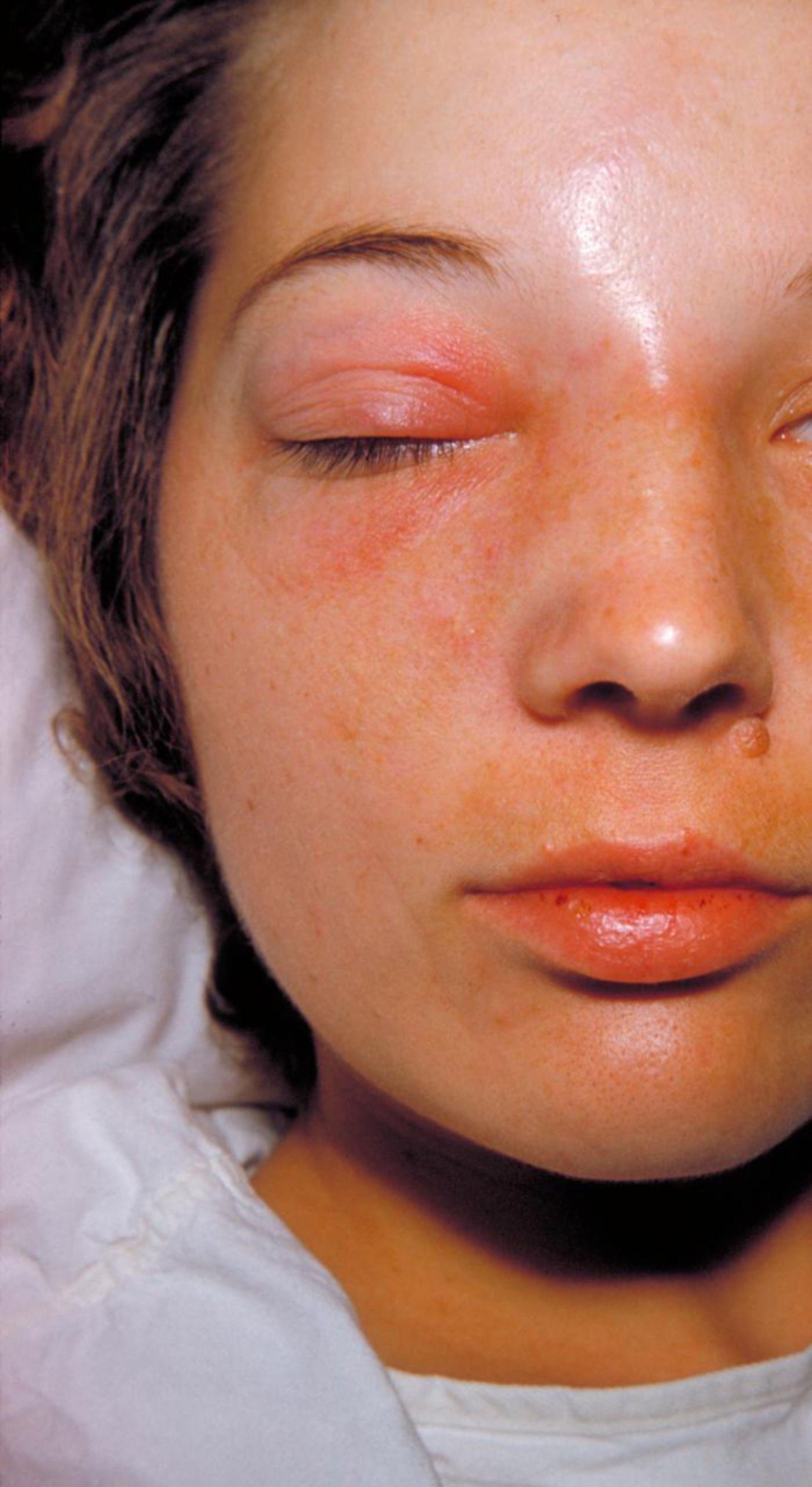 Zellgewebsentzündung der Augenhöhle