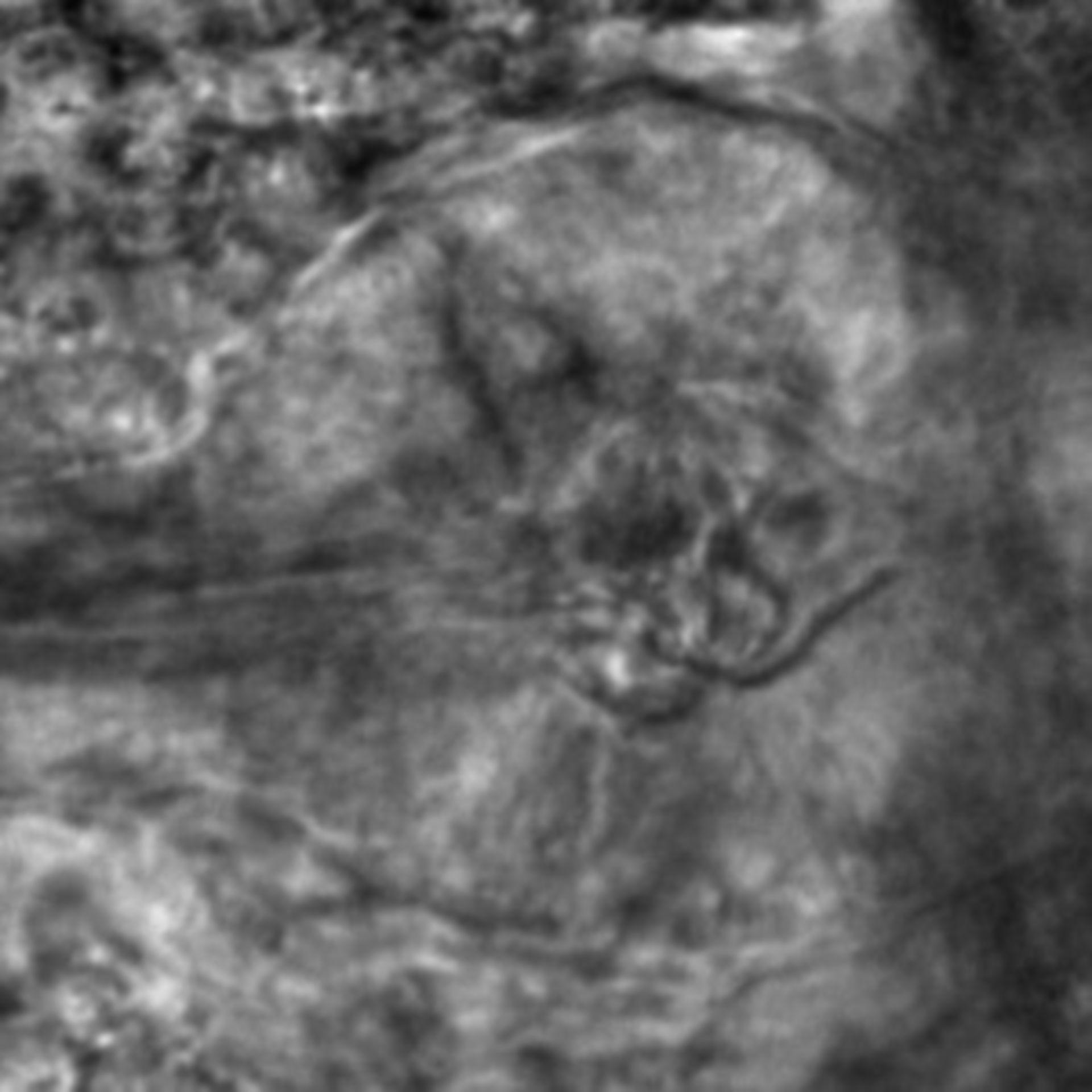 Caenorhabditis elegans - CIL:2566