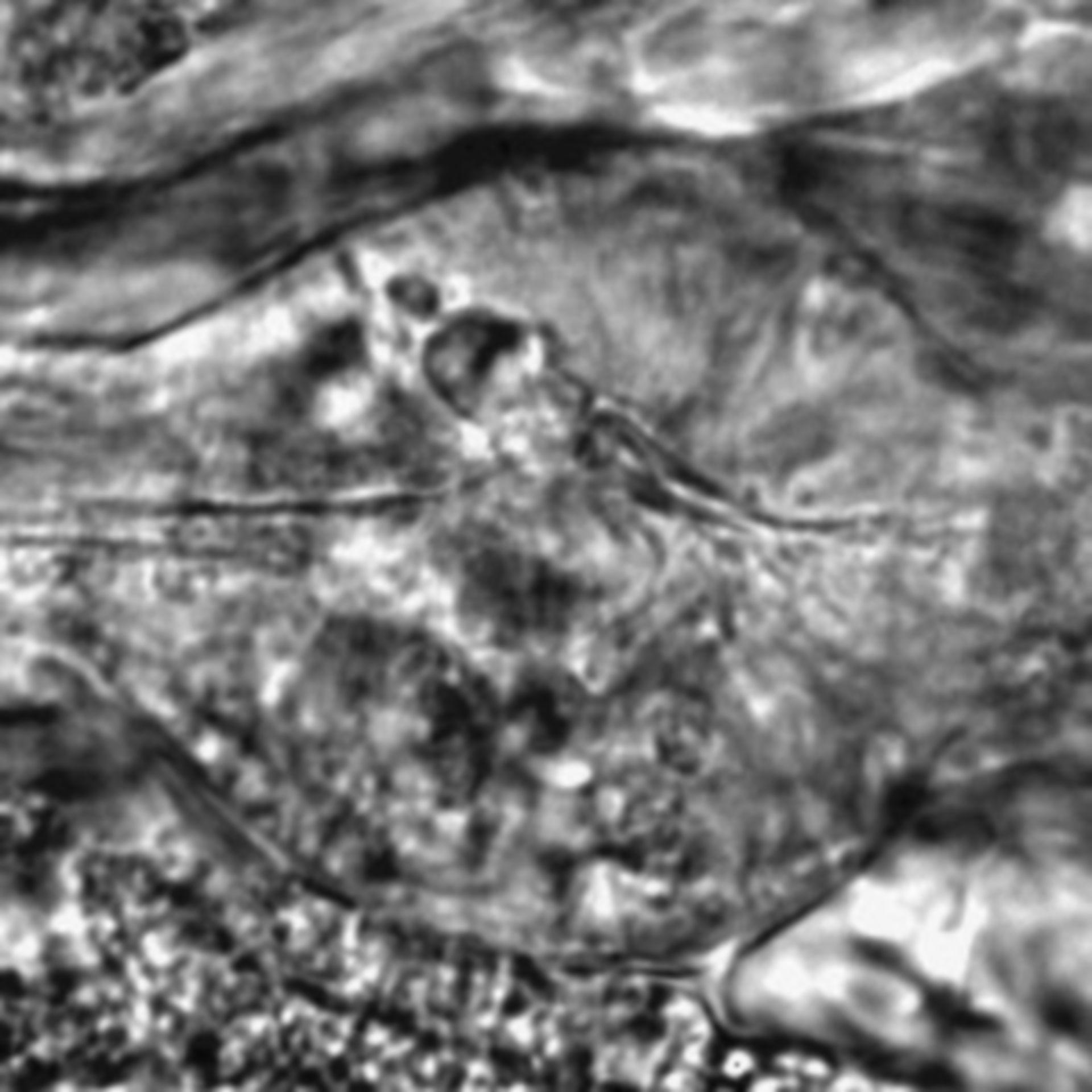 Caenorhabditis elegans - CIL:2693