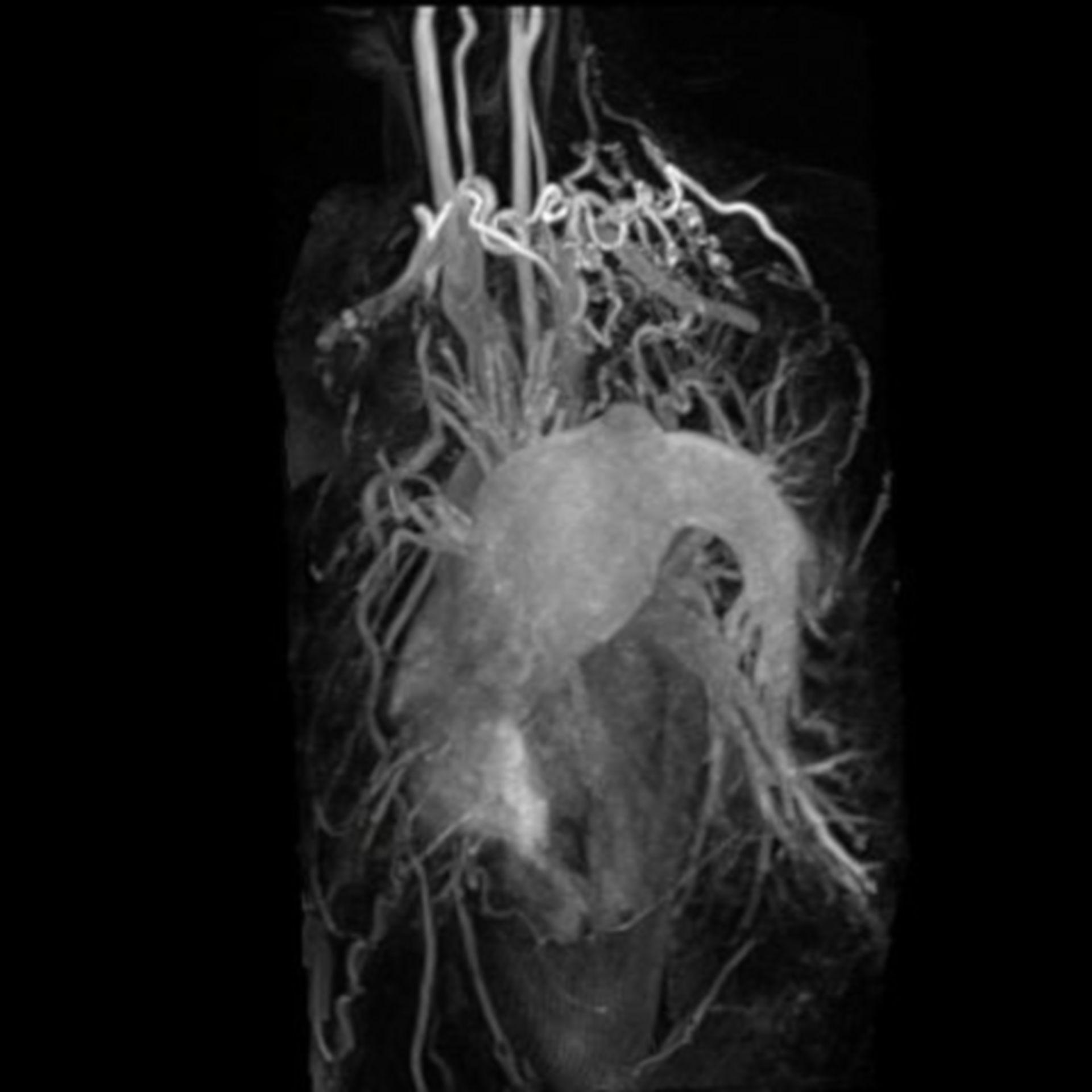 Angiograph der Aorta und der Halsschlagader