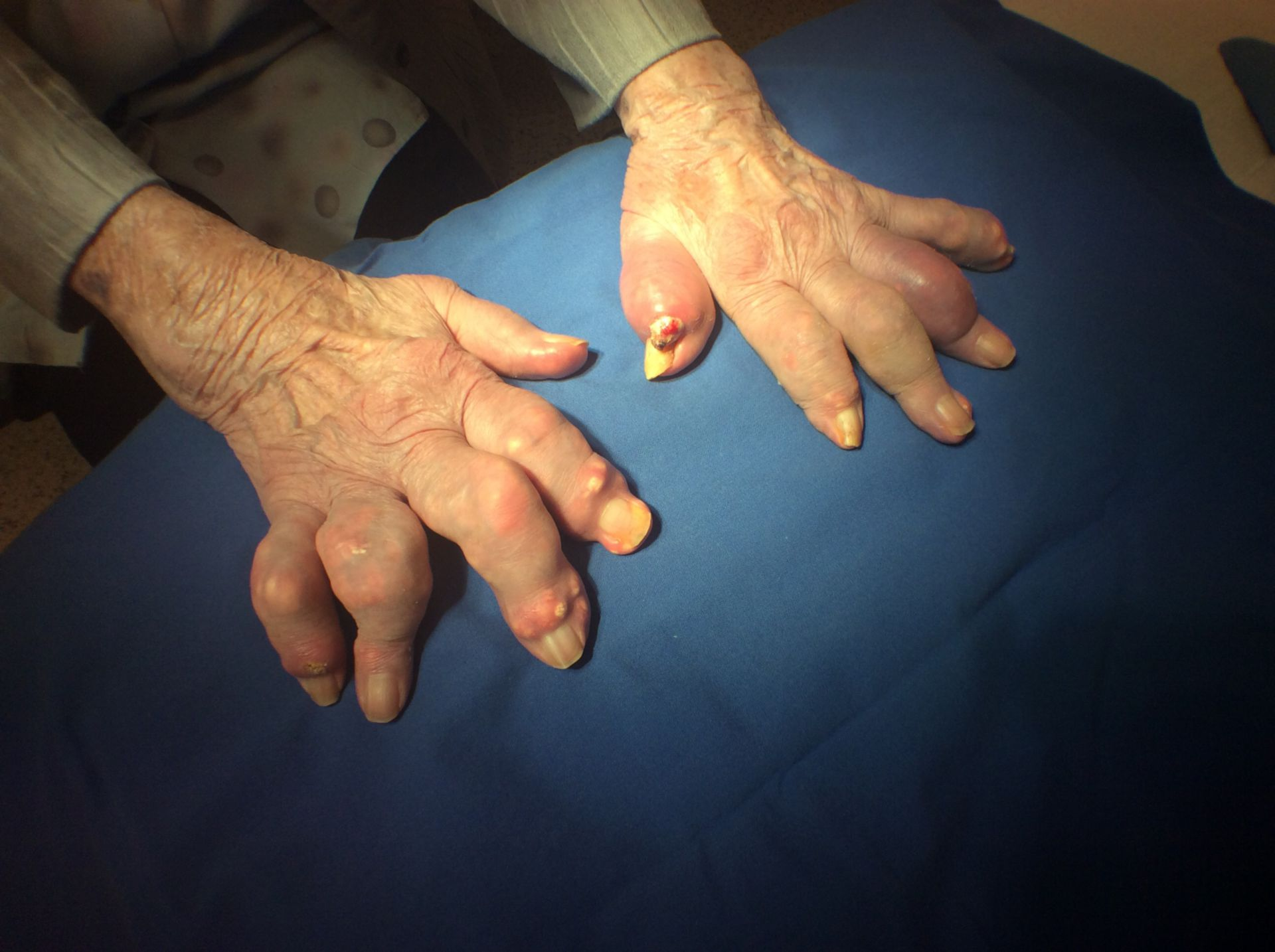 Gout in fingers