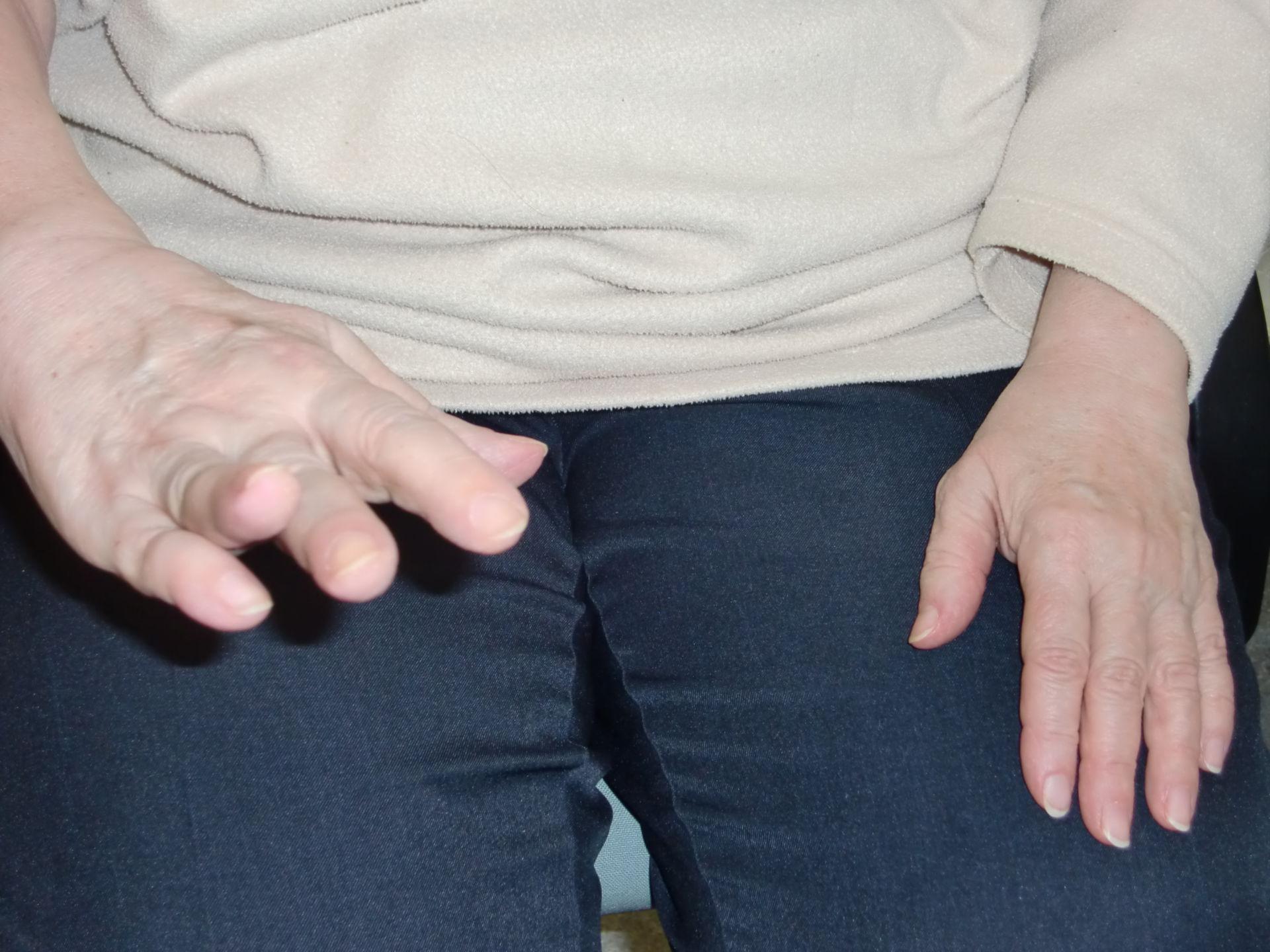 Frattura dell'omero - Radialisperase