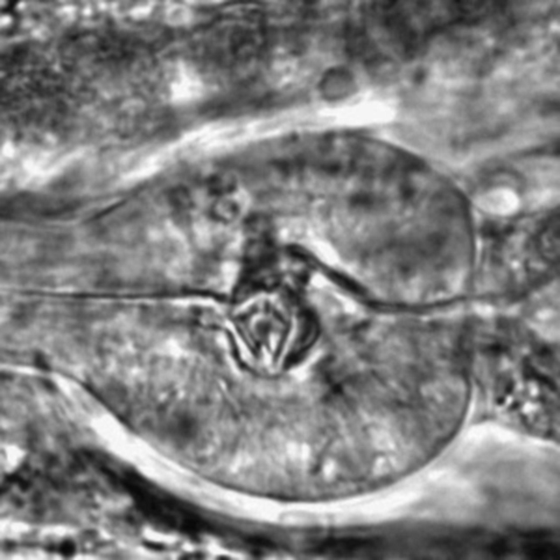 Caenorhabditis elegans - CIL:2293