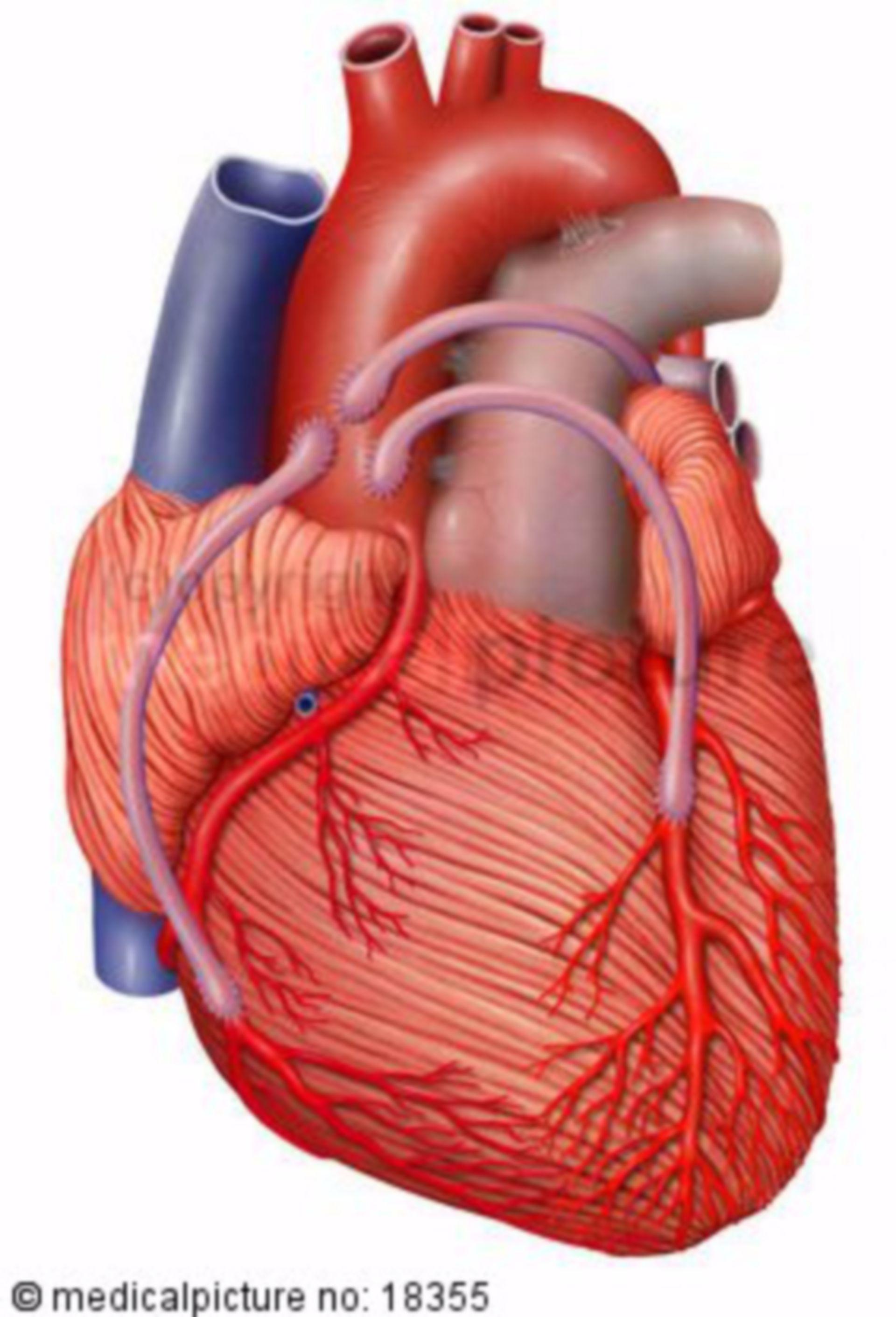 Corazón, arterias coronarias con bypass