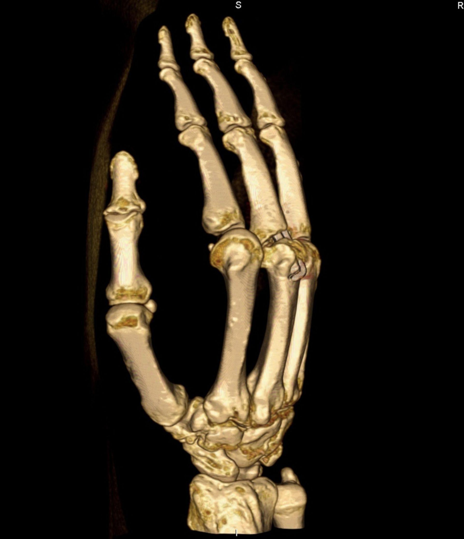 TAC scan - ricostruzione della mano