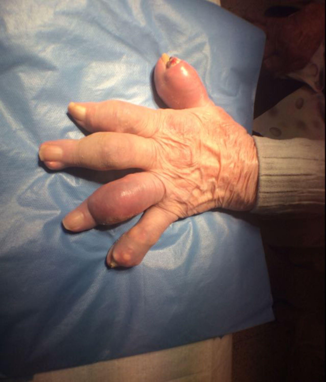 Arthritis urica- Gichttophi
