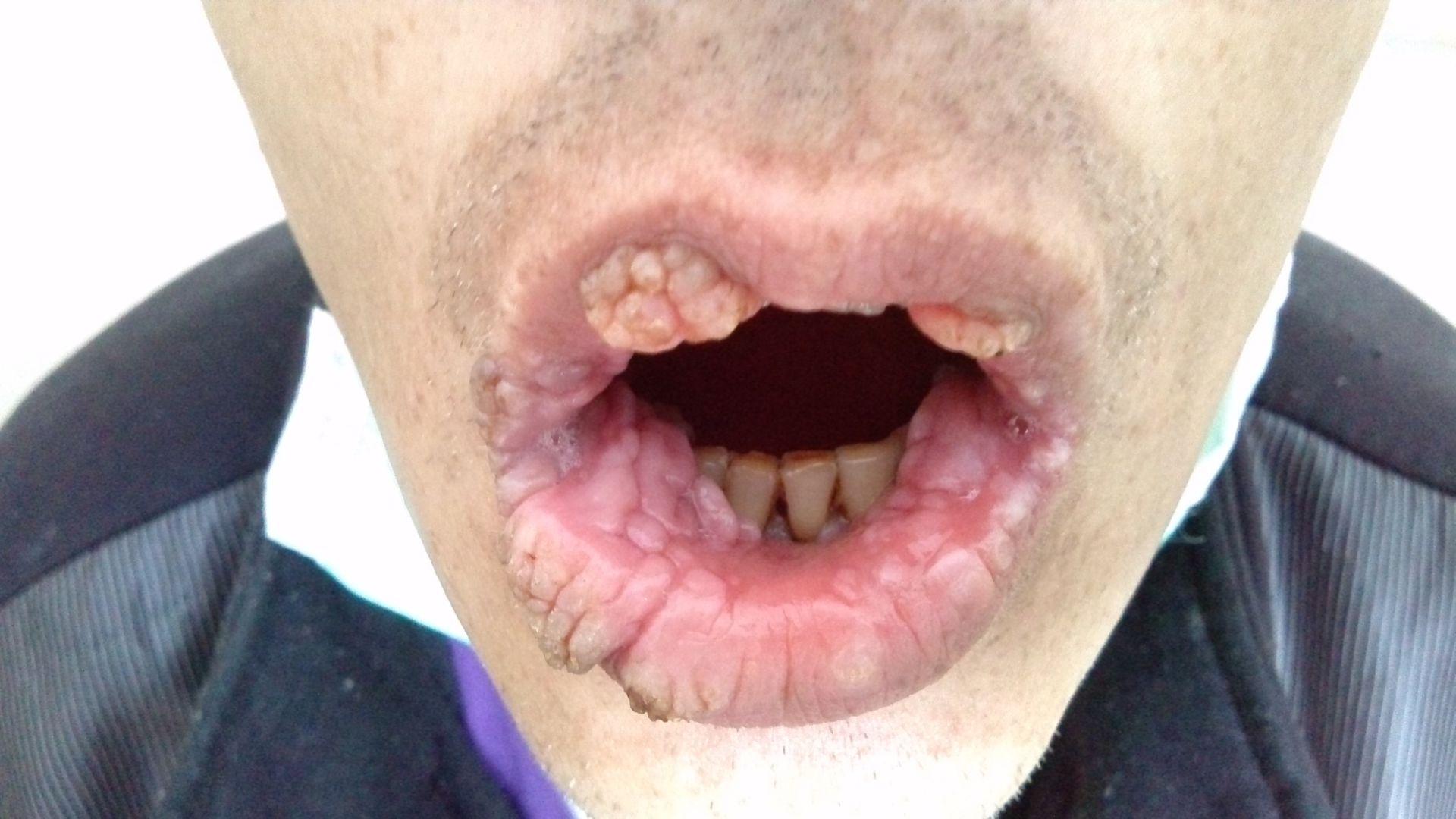 Papillomatous Lesions