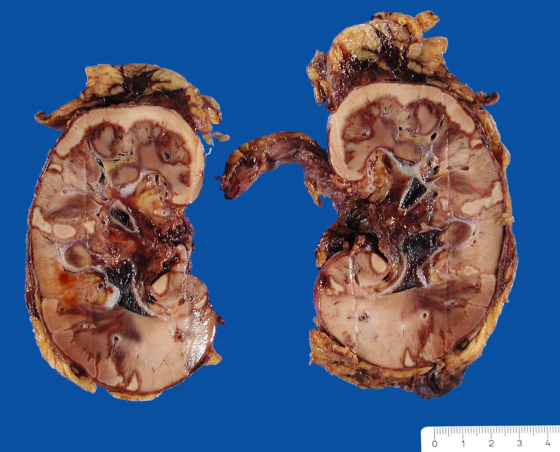Anämische Niereninfarkte bei traumatischer Arteriendissektion