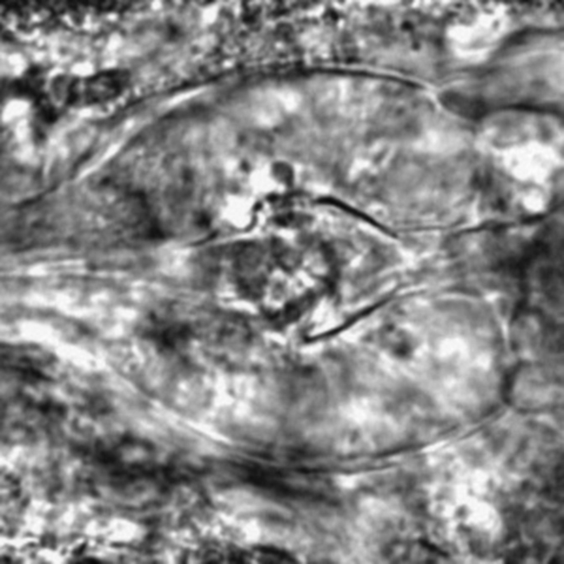 Caenorhabditis elegans - CIL:2748