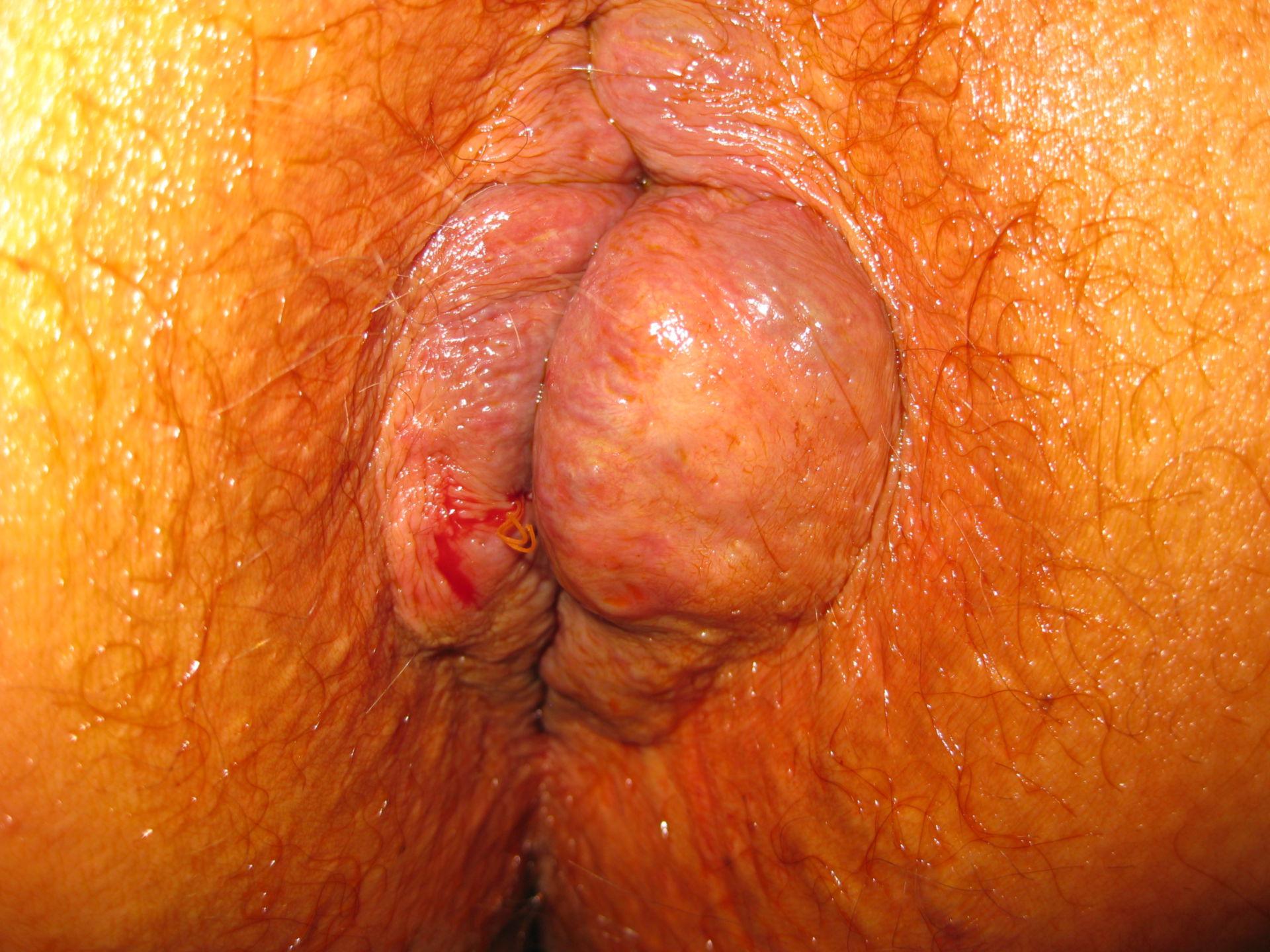 Hemorrhoids grade IV