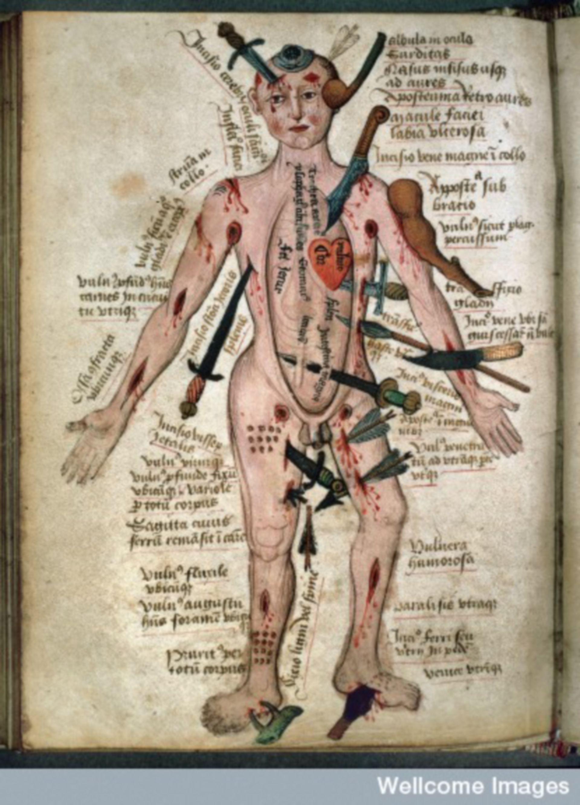 Wundenmann, aus: Pseudo-Galen, Anatomia