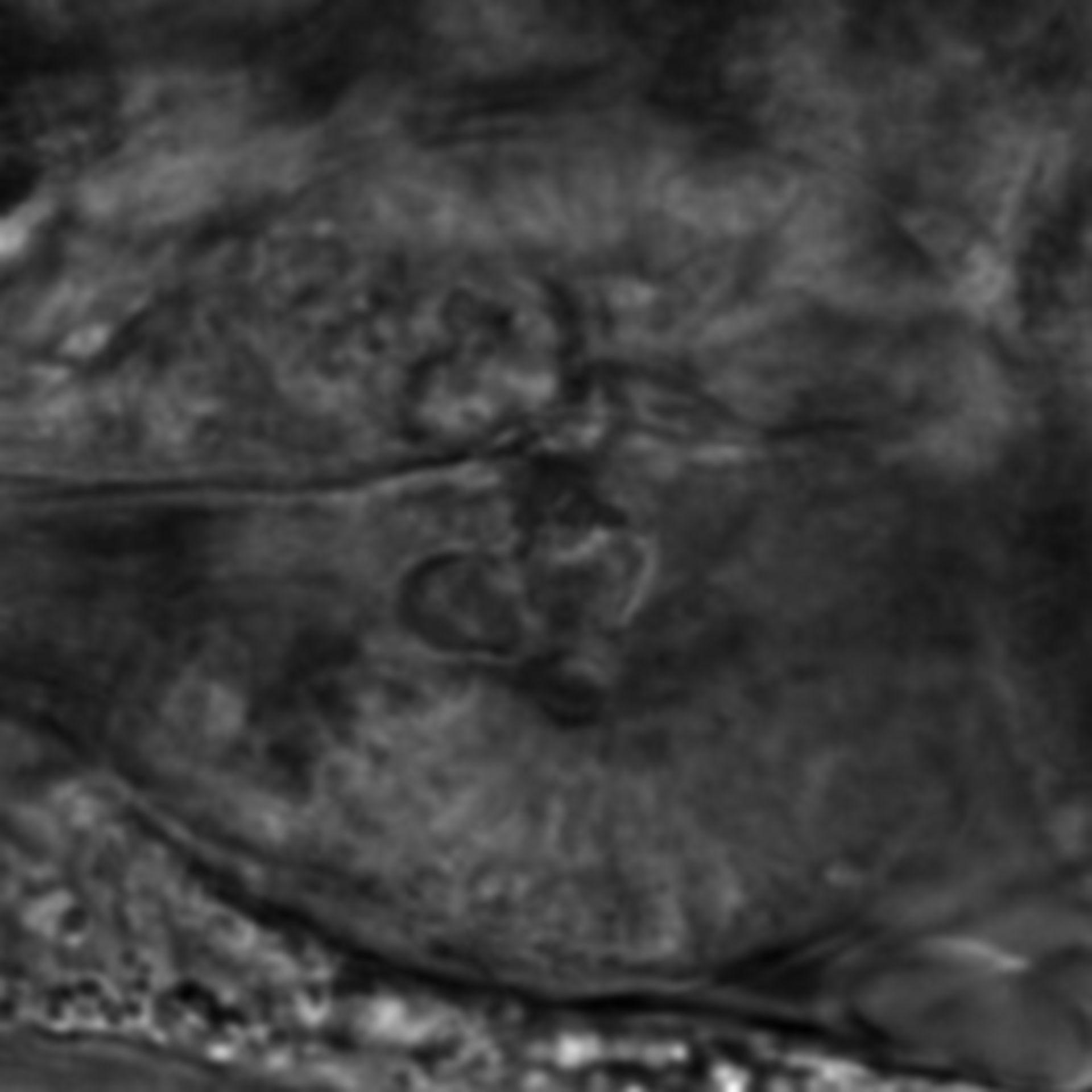 Caenorhabditis elegans - CIL:2822