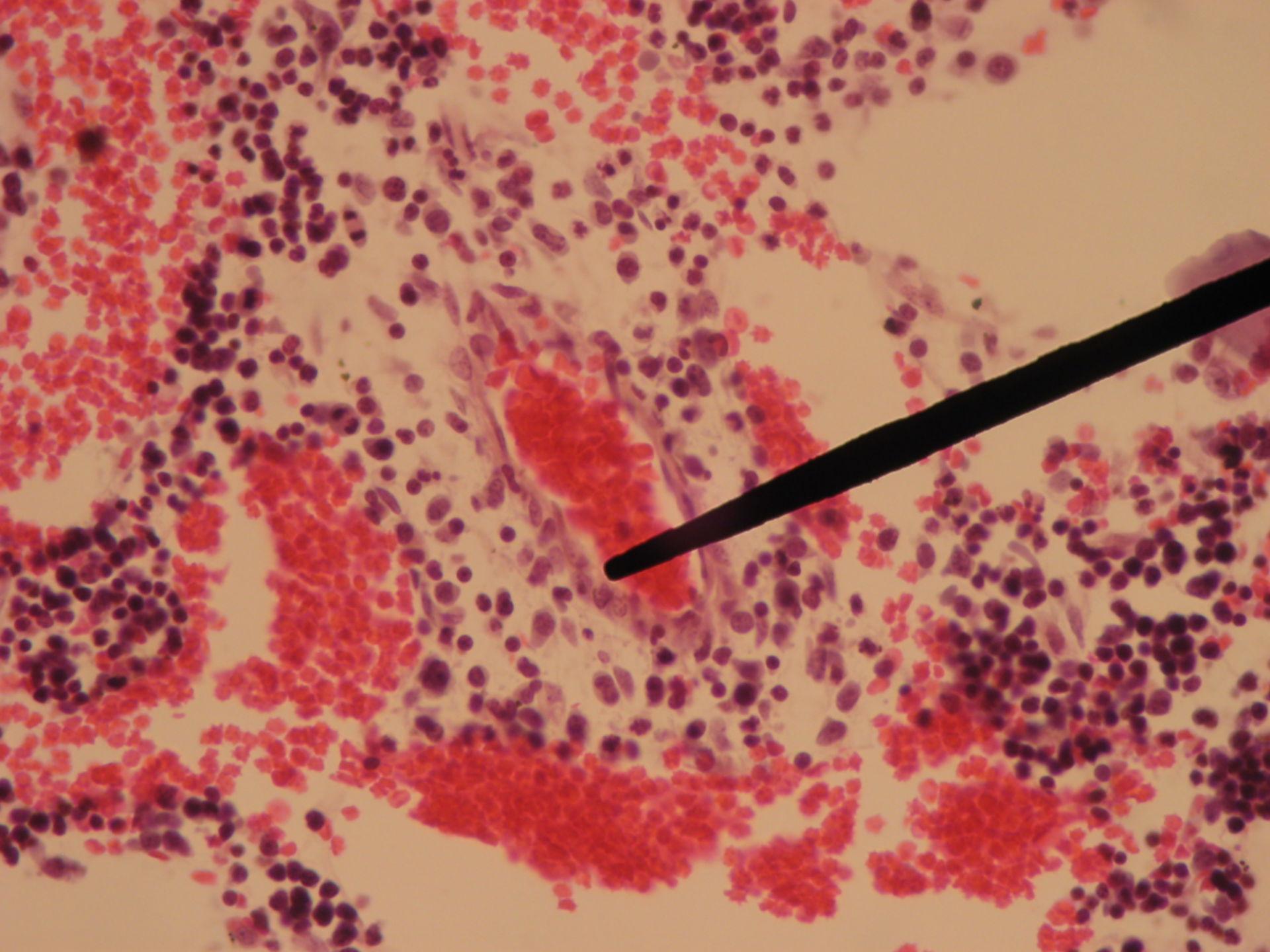 Rotes Knochenmark eines Schweinefetus (6) - Kapillare