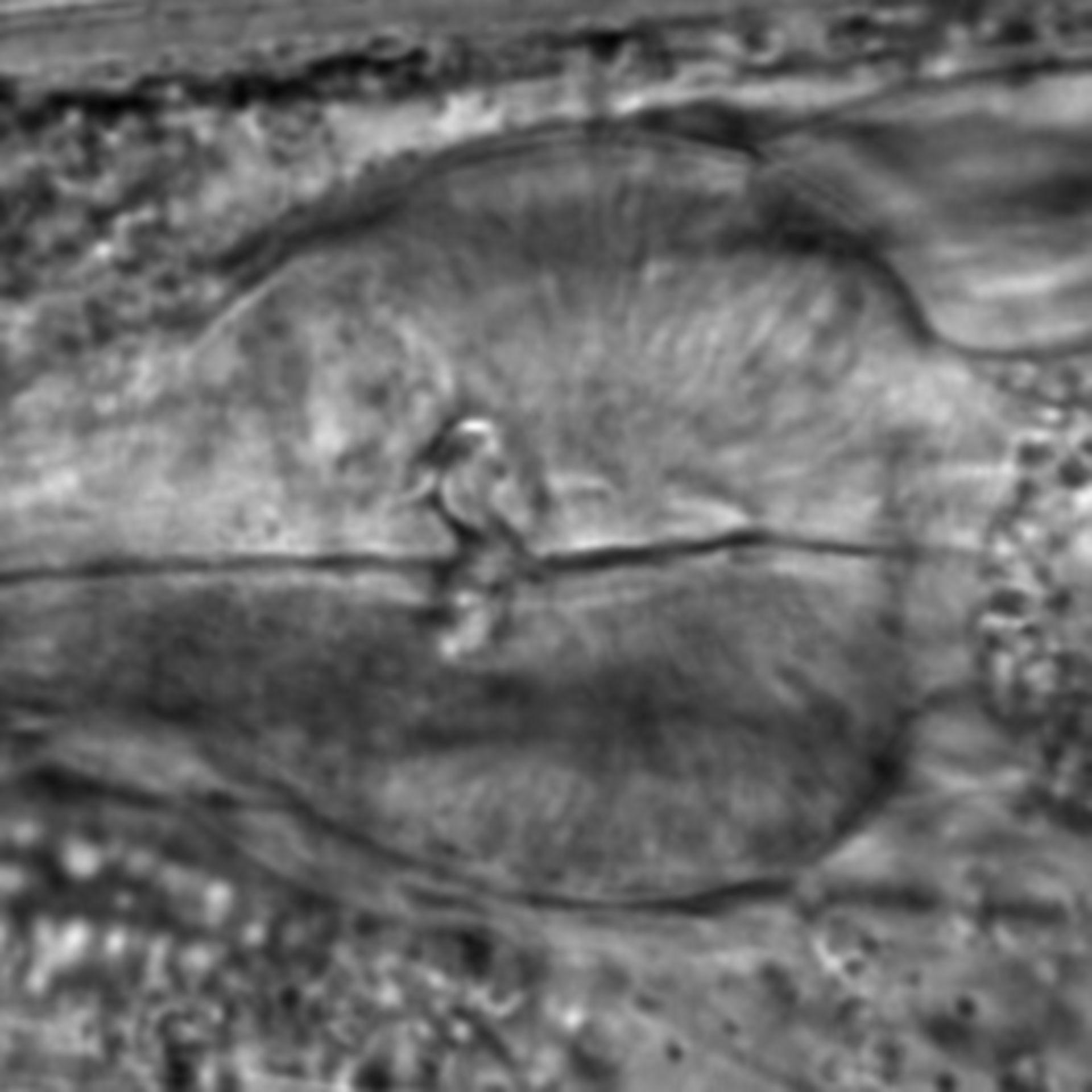 Caenorhabditis elegans - CIL:2795
